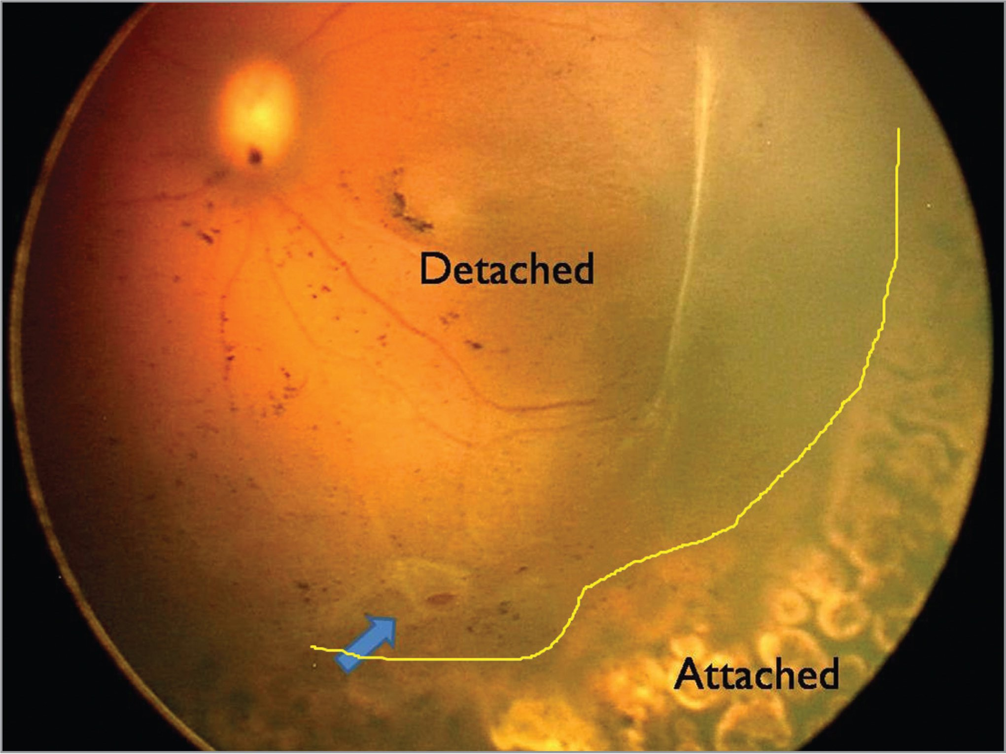 Fundus picture of the left eye showing a retinal break adjacent to a preretinal membrane (blue arrow) and a yellow line demarcating the detached (posterior pole) and attached retina.