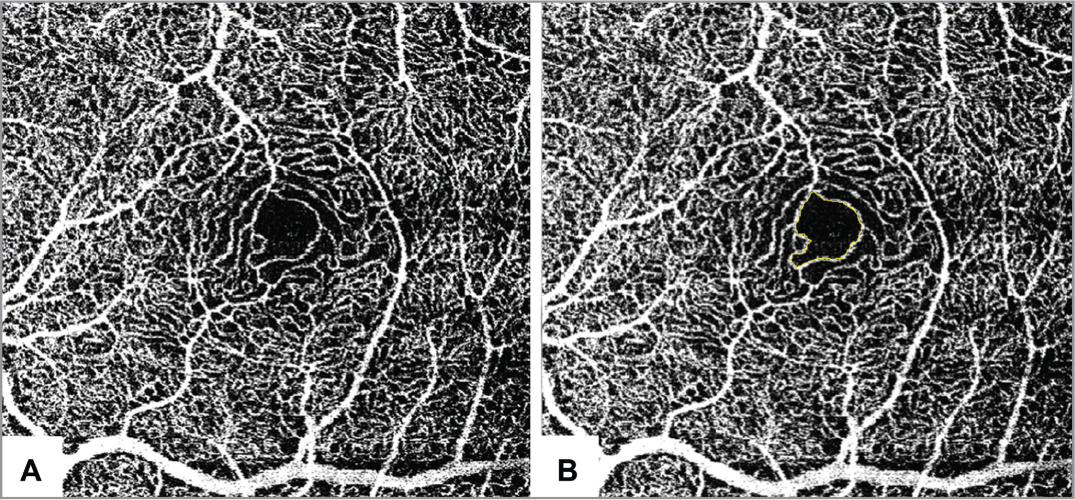 Optical coherence tomography angiography (OCTA) of the left eye of a 33-year-old, healthy male showing the foveal avascular zone before (A) and after (B) delineation with ImageJ software (National Institutes of Health, Bethesda, MD).