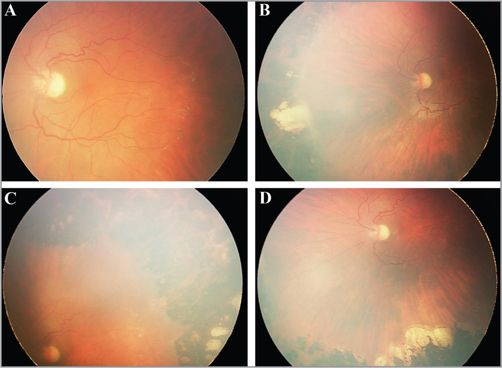 Fundus photos of the left eye. (A) Nasal dragging of the fovea with vascular tortuosity. (B–D) Attached retina with 360° peripheral laser treatment.