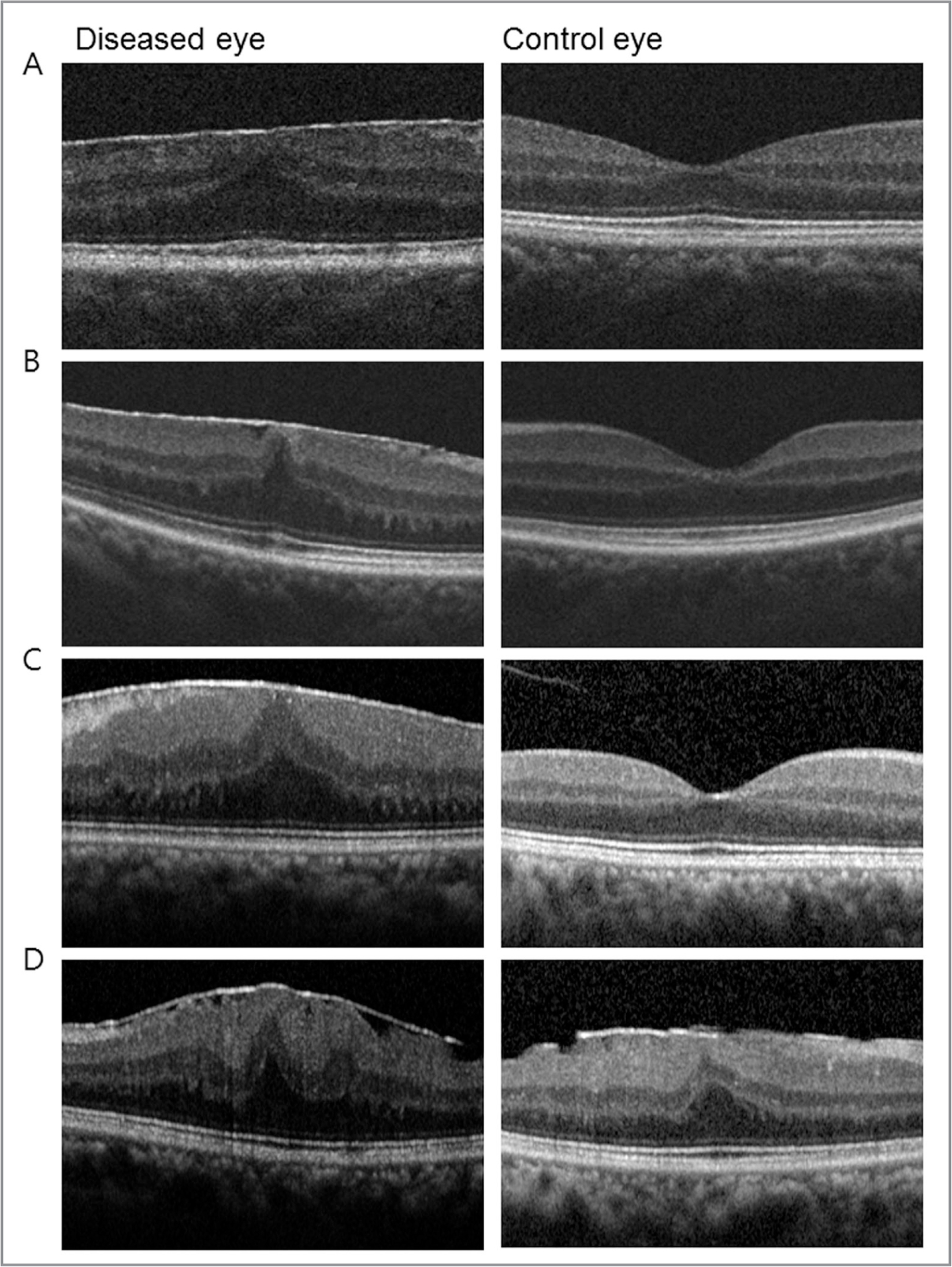 Optical coherence tomography (OCT) findings of patients with epiretinal membrane and macropsia. (A) OCT findings from an 82-year-old male with macropsia. The logMAR best-corrected visual acuity (BCVA) for the eye with macropsia was 20/25. (B) A 74-year-old female with macropsia. Her BCVA was 20/20 for the eye with macropsia. (C) A 74-year-old female without macropsia. Her BCVA was 20/25 for her diseased eye. (D) A 68-year-old female without macropsia. His BCVA was 20/40 for her diseased eye.
