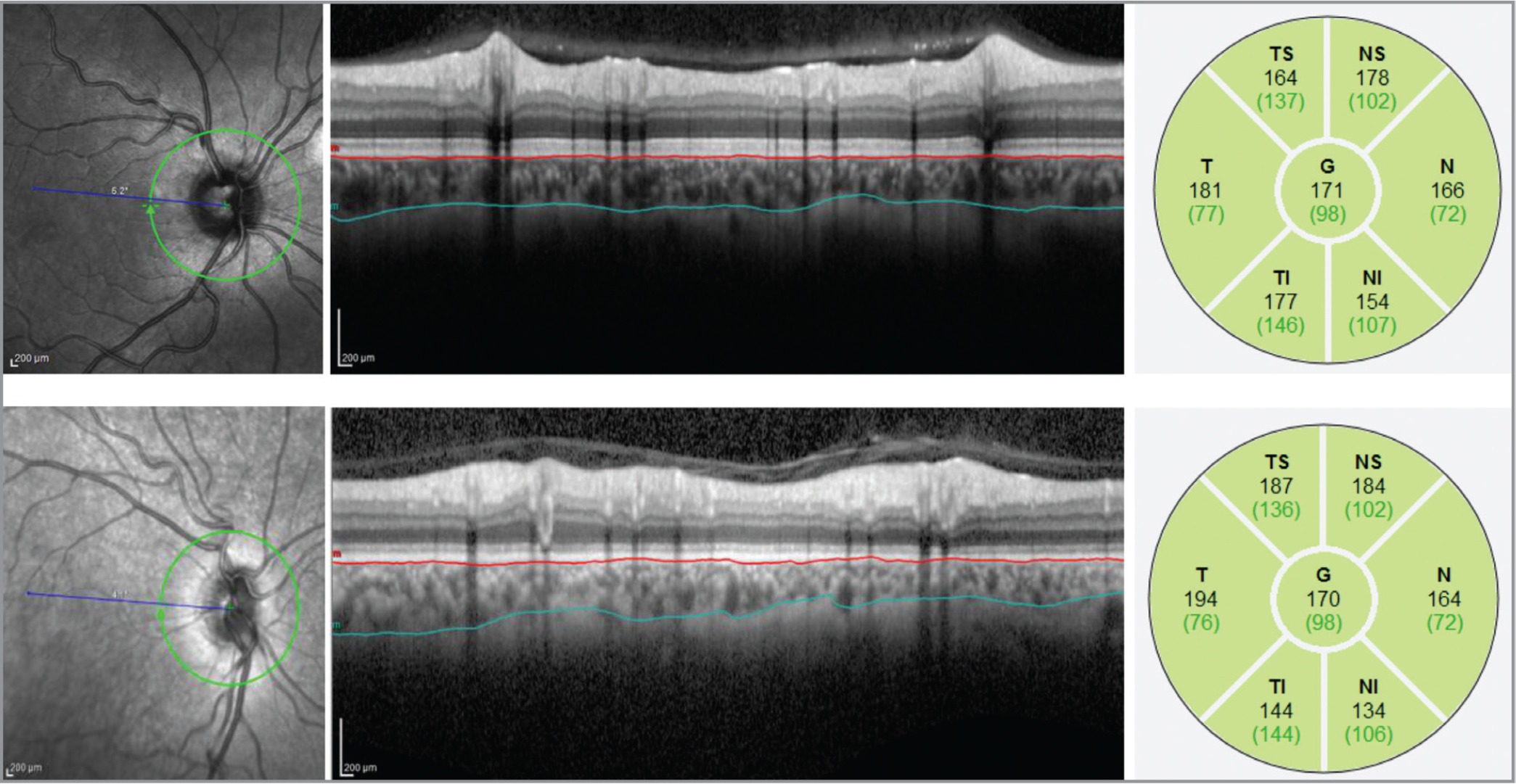 Choroidal thickness measurement using the imaging and analysis tool of Heidelberg Engineering spectral-domain optical coherence tomography (SD-OCT). The top panel displays an image and choroidal thickness profile of a 27-year-old patient with keratoconus, and the bottom panel presents the corresponding findings of a 26-year-old control. In the left picture, the location of the peripapillary scan is exposed in an infrared image. The middle picture illustrates the peripapillary SD-OCT scan displayed with the two borderlines of the choroidea, and the right picture presents the calculated thickness for each segment of peripapillary choroidal thickness. The numbers in parentheses and colors of each segment display the standard values for the peripapillary retinal nerve fiber layer thickness, and not for the peripapillary choroidea thickness. TS = temporal superior; T = temporal; TI = temporal inferior; NS = nasal superior; N = nasal; NI = nasal inferior; G = global.