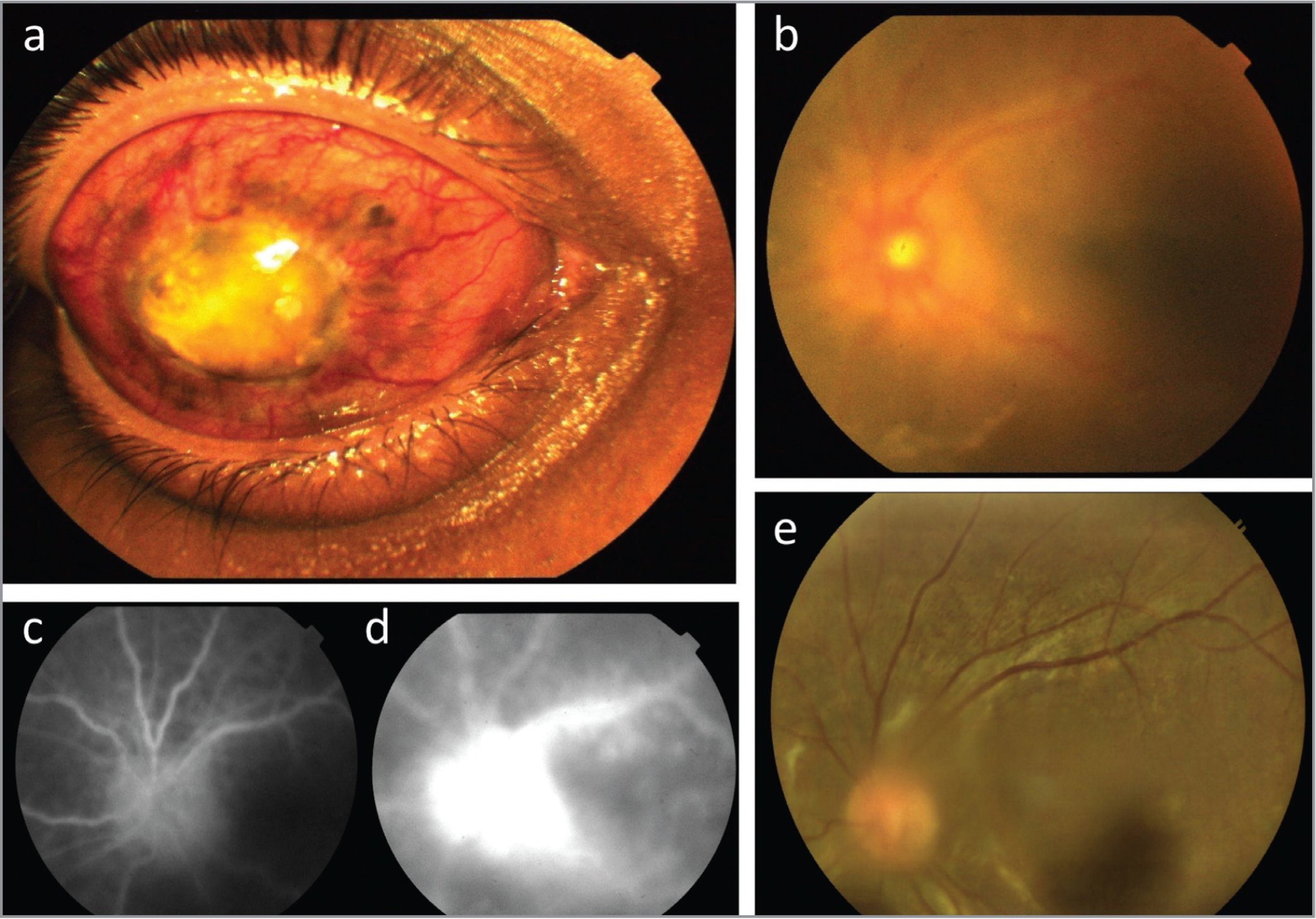 External photograph (a) shows the exciting blind right eye with no light perception following traumatic injury 20 years ago. Fundus photography (b) of the sympathizing left eye with acute sympathetic ophthalmia shows presence of vitritis with disc swelling and perivasculitis in the posterior pole. Fluorescein angiography in the early frame (c) shows early pin-point hypofluoresent spots in the superior midperipheral area and early disc hyperfluorescence. In the late frame of the angiography (d), there is leakage at the disc and diffuse perivascular leakage. Follow-up photograph at 6 months shows resolution of disc swelling and vitreous haze, along with significant reduction in vitreous opacities (e).