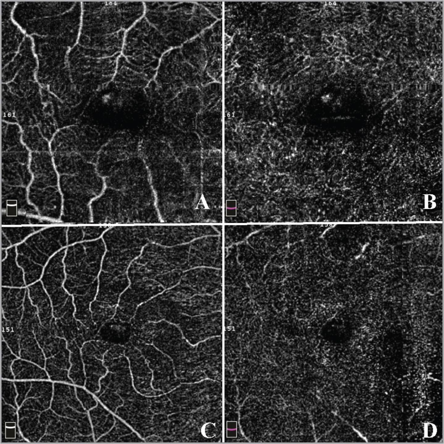 En face optical coherence tomography example of patient with diabetes without retinopathy with no vascular abnormalities. (A) 3 × 3 superficial capillaries area. (B) 3 × 3 deep capillaries area. (C) 6 × 6 superficial capillaries area. (D) 6 × 6 deep capillaries area.