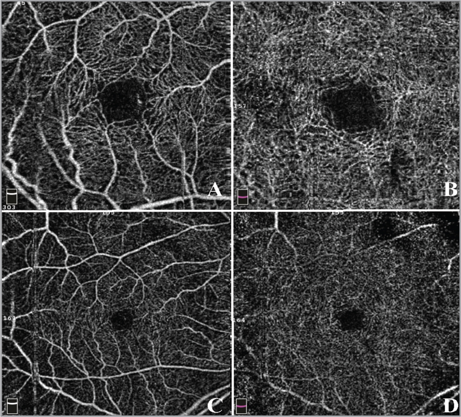 En face optical coherence tomography example of a patient without retinopathies. (A) 3 × 3 superficial capillaries area. (B) 3 × 3 deep capillaries area. (C) 6 × 6 superficial capillaries area. (D) 6 × 6 deep capillaries area.