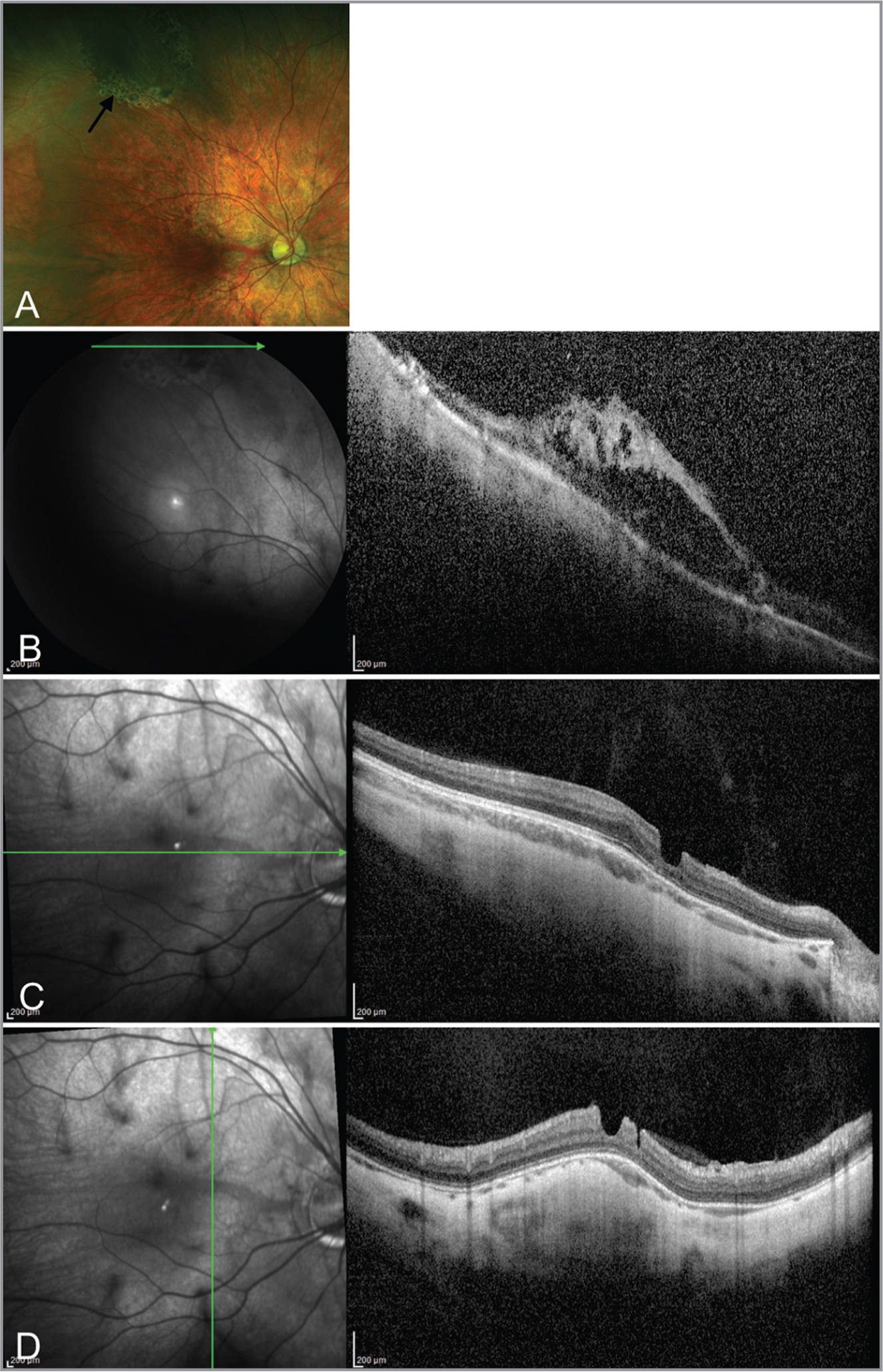 Fundus photograph and spectral-domain optical coherence tomography (SD-OCT) of the right eye after laser retinopexy in Case 2. (A) Fundus photograph demonstrating superotemporal laser retinopexy scars surrounding area of traction from persistent fetal vasculature stalk. SD-OCT demonstrating (B) elevation of retina with irregular anatomy within area surrounded by laser retinopexy and (C and D) irregular anatomy and contour of macula.