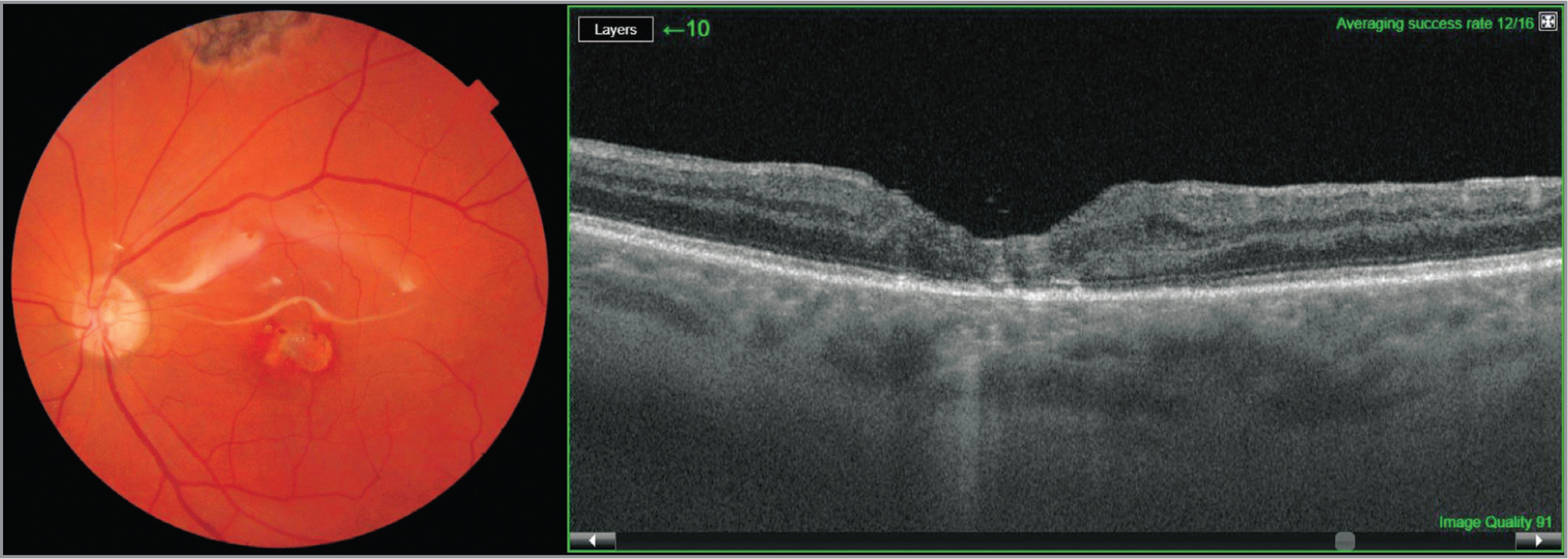 (Left) Native fundus photo with closed macular hole and harvested site; at 3-month follow-up with best-corrected visual acuity (BCVA) of 20/60. Silicone oil tamponade. (Right) Optical coherence tomography scan at 3-month follow-up with BCVA of 20/60. Silicone oil tamponade.