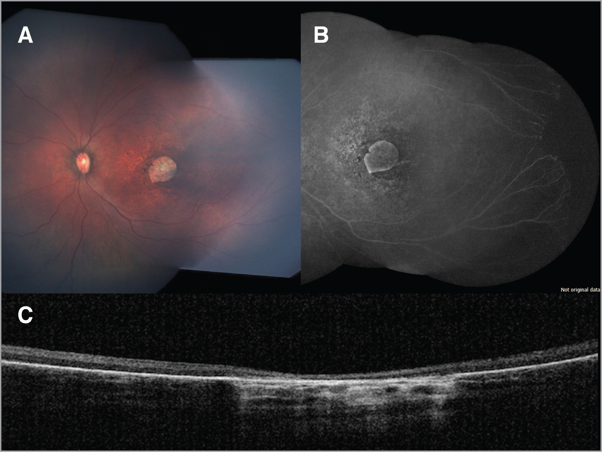 Ophthalmological findings in a full-term infant with congenital Zika syndrome. (A) Fundus montage of the left eye (OS) demonstrating increased optic nerve cupping, focal pigmentary changes, and well-defined chorioretinal atrophy within the macular region. (B) Fluorescein angiography montage of the OS showing a window defect in the macular region and peripheral avascularity of the temporal retina. (C) Macular optical coherence tomography of the right eye revealing retinal and choroidal thinning with discontinuation of the ellipsoid zone.