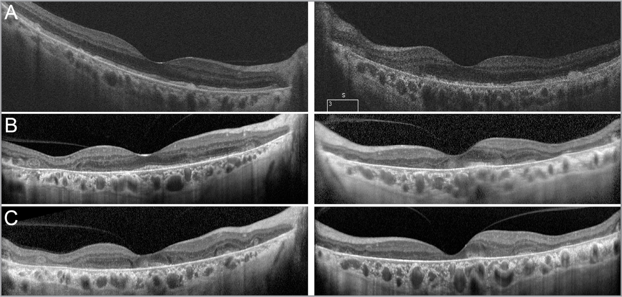 Serial optical coherence tomography (OCT) imaging. OCT at the initial visit (A, age 62) demonstrated bilateral hyperreflective nodular deposits at the level of the retinal pigment epithelium (RPE) in addition to disruption and loss of RPE and photoreceptors that was most pronounced in the left eye. Subsequent visits approximately 4 and 6 years after stopping PPS (B, age 67; C, age 69) showed bilateral progressive fovea-involving atrophy of the RPE and photoreceptors. Outer retinal tubulations were present in the right eye at the second two visits.