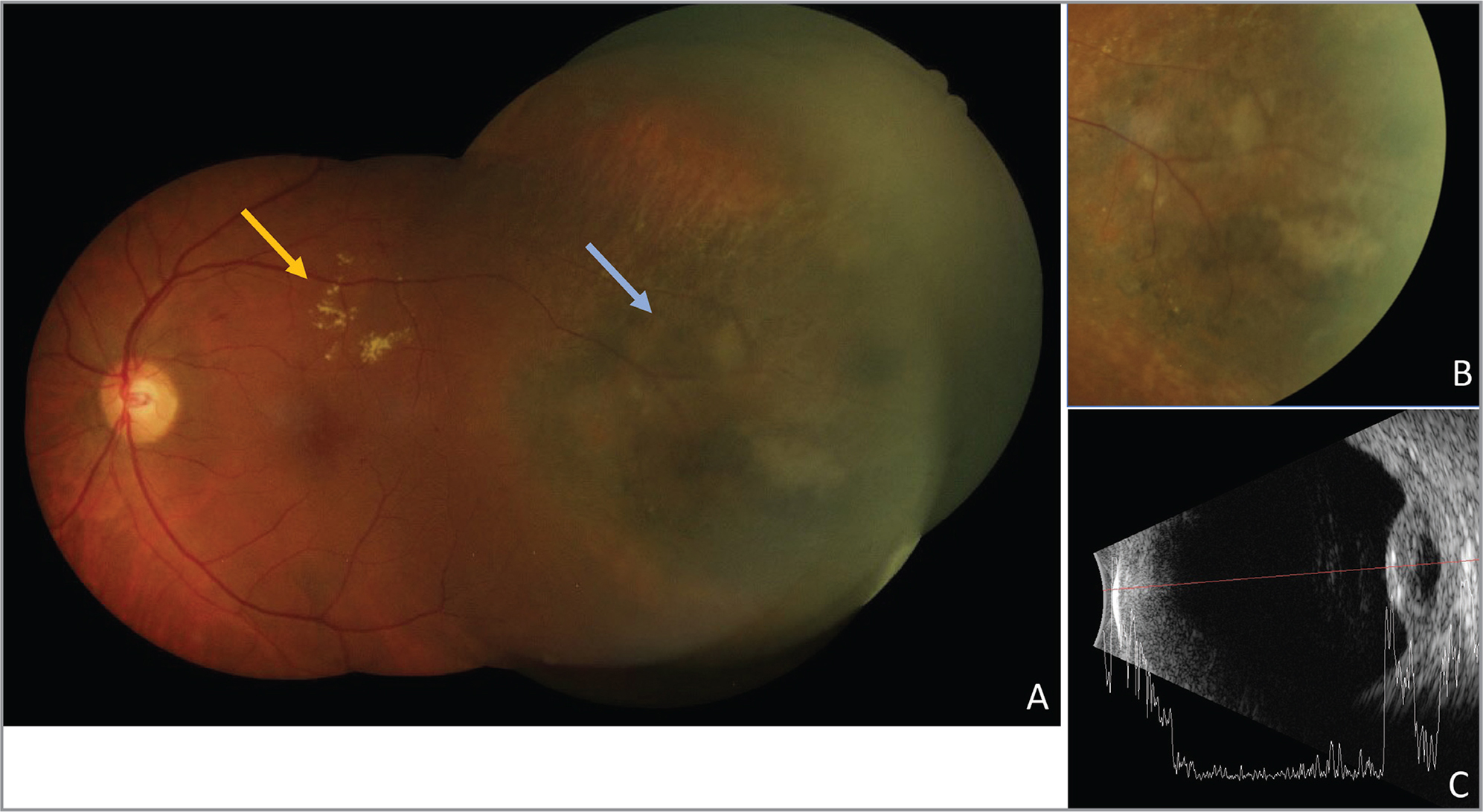 Fundus photographs (A, B) of a 77-year-old female with choroidal melanoma. The patient presented with slowly progressive, painless vision loss. The exam was significant for subretinal fluid and exudates (yellow arrow), as well as a dome-shaped choroidal lesion temporally (blue arrow). (C) The A-scan revealed the low internal reflectivity that is classic in choroidal melanoma.