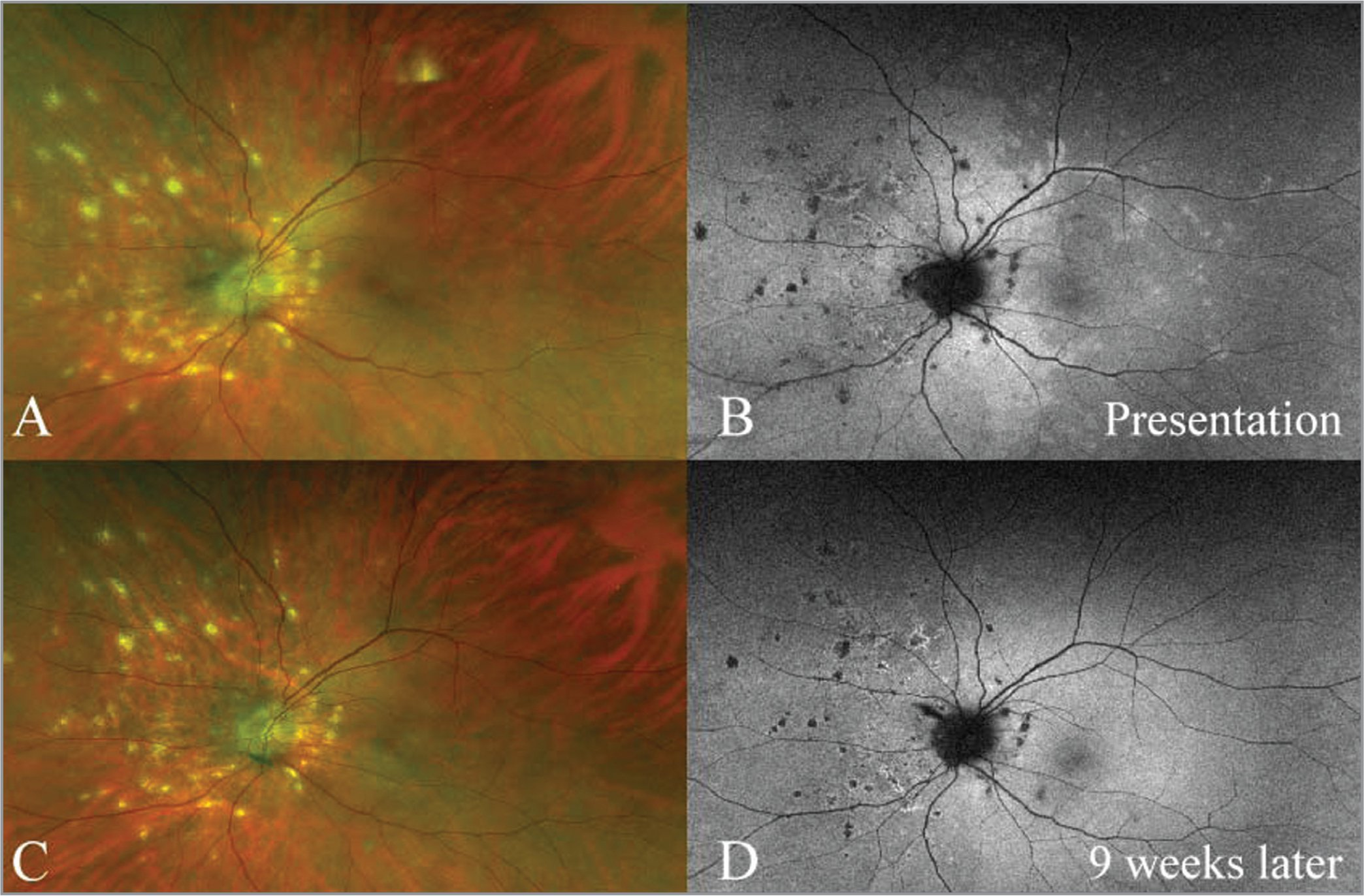 Color photographs (A, C) and fundus autofluorescence (FAF) (B,D) of a patient with transient hyperautofluorescence, which resolved by 9 weeks after initial presentation. There is very little evidence of change in the color photos, but the FAF demonstrates marked resolution of the abnormal hyperautofluorescence seen at presentation.