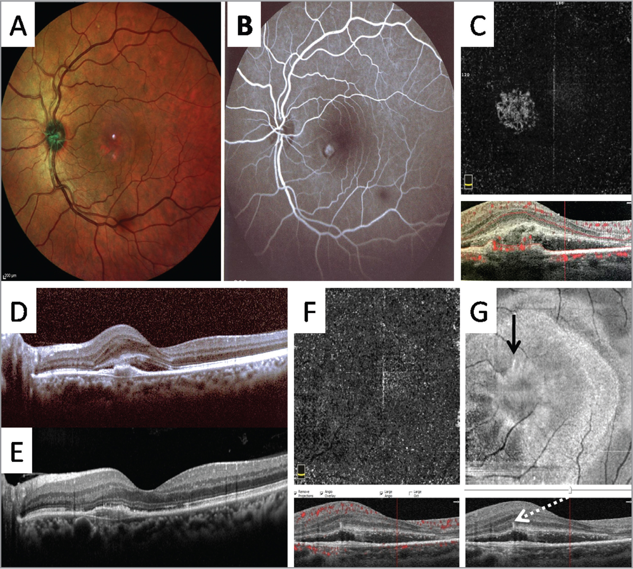 Multicolor fundus image (A), fluorescein angiography (B), en face optical coherence tomography angiography (OCTA) (C, F), OCT (D, E), and en face structural OCT (G) images from a 52-year-old man with idiopathic choroidal neovascularization (CNV). Radial hyperreflective spikes are noted with the en face structural OCT and corresponding pitchfork spikes are present with the OCT B-scan at baseline (black arrow and dashed white arrow, respectively, G). A vascular flow signal is absent in the en face OCTA image (F) corresponding to the radial spikes (G).