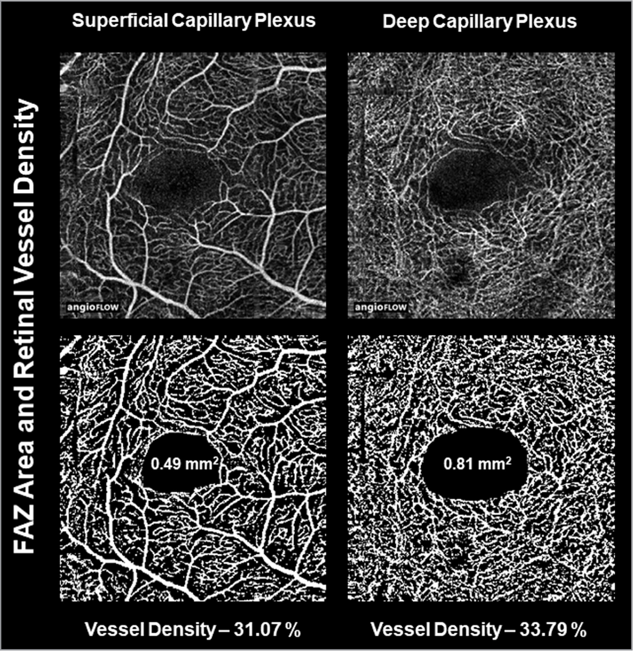 Image depicts a representative image of vessel density of superficial and deep vasculature of the amblyopic eye. FAZ = foveal avascular zone