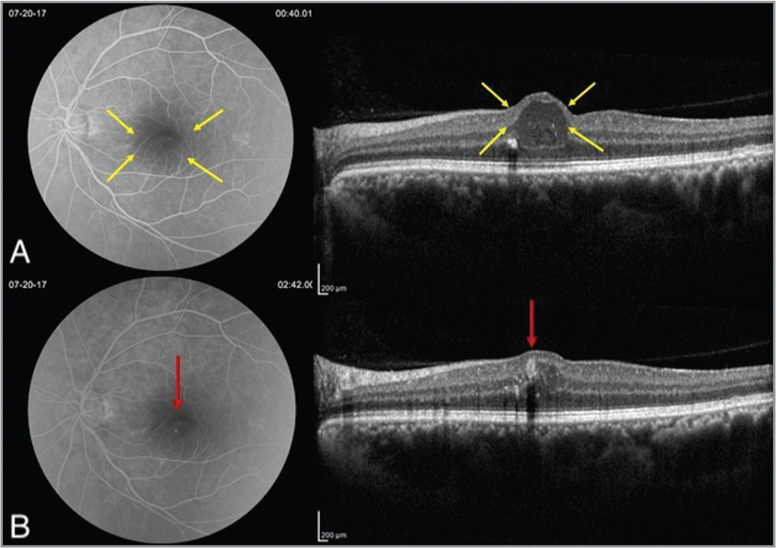 (A, B) Fluorescein angiography (FA) images (left) with corresponding optical coherence tomography (OCT) images (right). (A) Note early hyperfluorescence on FA corresponding with cystic intraretinal fluid on OCT (yellow arrows). (B) Punctate area of late leakage defines perifoveal exudative vascular anomalous complex lesion on FA. On OCT, it is seen as an ovoid hyperreflective perifoveal aneurysm with a hyporeflective lumen (red arrow).