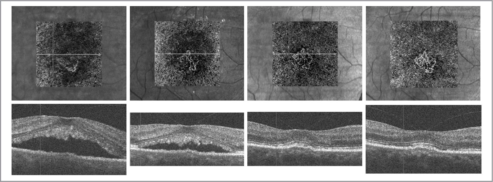 Choroidal neovascular membrane (CNVM) in chronic central serous chorioretinopathy. First column: En face optical coherence tomography angiography (OCTA) immediately prior to half-fluence photodynamic therapy (PDT) with segmentation through the choriocapillaris, demonstrating evidence of a tangled vascular network consistent with a CNVM (top). Relative signal void likely due to projection artifact from overlying serous retinal detachment evident on the structural OCT (bottom). Second column: OCTA 2 weeks after PDT with more clearly defined CNVM and decreased flow void (top) with a corresponding decrease in subretinal fluid (bottom). Third column: OCTA 2 months after PDT demonstrating increasing size of CNVM (top) with complete resolution of subretinal fluid and retinal pigment epithelial detachment (bottom). Fourth column: OCTA 11 months after PDT demonstrating further increase in size of CNVM (top) with no exudative changes noted on structural OCT (bottom).