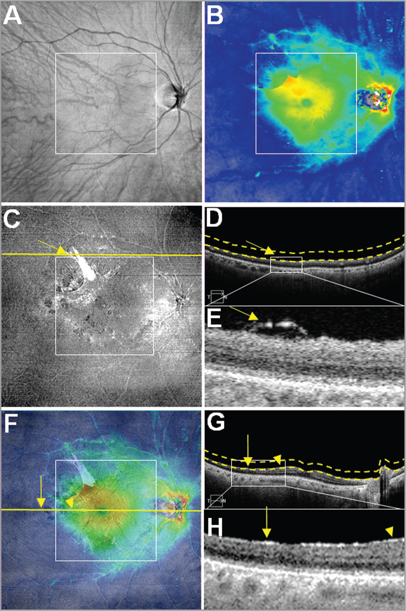 Case No. 1: Multi-segmented images from a single 12 mm × 12 mm swept-source optical coherence tomography (SS-OCT) scan of an epiretinal membrane (ERM) in the right eye of a 65-year-old woman. The white square boxes centered on the fovea in panels A, B, C, and F represent a 6 mm × 6 mm field of view (FOV). (A) OCT fundus image. Notice some vessels converging to the ERM superotemporally. (B) Retinal thickness map (RTM). Note the superotemporal thickening of the retina corresponding to the ERM traction. (C) Vitreoretinal interface (VRI) en face image. The image shows a hyperreflective ERM extending from the parafoveolar to the superotemporal region. Yellow arrows in images C, D, and E are pointing to the edge of the ERM and emphasize potential traction and adherence of the ERM outside the 6 mm × 6 mm FOV. (D) B-scan corresponding to the yellow line of C outside the 6 mm × 6 mm white square. Dashed lines define the upper and lower boundaries of the VRI en face slab. (E) Magnification of the white rectangle of the image D. This demonstrates the extent of the ERM outside the 6 mm × 6 mm FOV. (F) Overlay of Panel B (60% transparency) on top of Panel C. Yellow horizontal line represents the foveal B-scan. Yellow vertical arrow highlights the extent of the ERM outside 6 mm × 6 mm FOV, whereas the yellow arrowhead indicate the presence of the ERM within the 6 mm × 6 mm FOV. (G) Foveal B-scan. Dashed lines define the upper and lower boundaries of the VRI en face slab. (H) Magnified B-scan of the white square shown in Panel G. The ERM extends from inside the 6 mm × 6 mm FOV (yellow arrowhead) to the outside 6 mm × 6 mm FOV (yellow vertical arrow).
