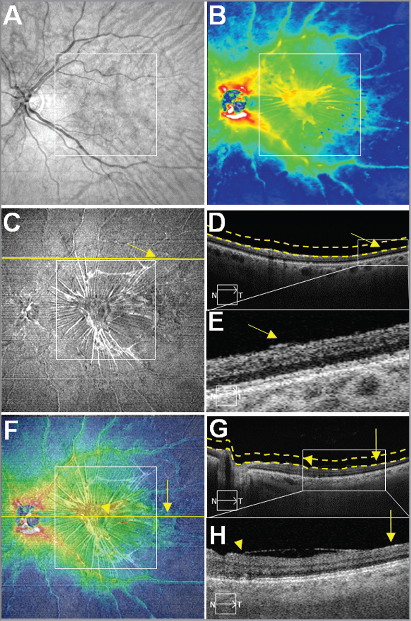 Case No. 2: Multi-segmented images from a single 12 mm × 12 mm swept-source optical coherence tomography (SS-OCT) scan of an epiretinal membrane (ERM) in the left eye of a 68-year-old woman. The white square boxes centered on the fovea in panels A, B, C, and F represent a 6 mm × 6 mm field of view (FOV). (A) OCT fundus image. Notice some vessel tortuosity in the macular area. (B) Retinal thickness map (RTM). Note the disappearing of the foveal contour. Radiation and ERM striae can be appreciated. (C) Vitreoretinal interface (VRI) en face image. The image shows a hyperreflective ERM, which correspond to ERM striae centrifugally spreading from the fovea beyond the 6 mm × 6 mm FOV. Yellow arrows in images C, D, and E emphasize potential traction and adherence of the ERM outside the 6 mm × 6 mm FOV. Note that the yellow arrow points to the edge of the ERM. (D) B-scan corresponding to the yellow line outside the 6 mm × 6 mm white square shown in image C. Dashed lines define the upper and lower boundaries of the VRI en face slab. (E) Magnification of the white rectangle of the image D. This demonstrates the extent of the ERM outside the 6 mm × 6 mm FOV. (F) Overlay of Panel B (60% transparency) on top of Panel C. Yellow horizontal line represents the foveal B-scan. Yellow vertical arrow in Panels F, G, and H highlight the extent of the ERM outside the 6 mm × 6 mm FOV, whereas the yellow arrowheads indicate the presence of the ERM within the 6 mm × 6 mm FOV. (G) Foveal B-scan. Dashed lines define the upper and lower boundaries of the VRI en face slab. (H) Magnified B-scan from within the white square shown in Panel G. Observe the massive extension of the ERM from inside the 6 mm × 6 mm FOV (yellow arrowhead) to outside the 6 mm × 6 mm FOV (yellow vertical arrow).