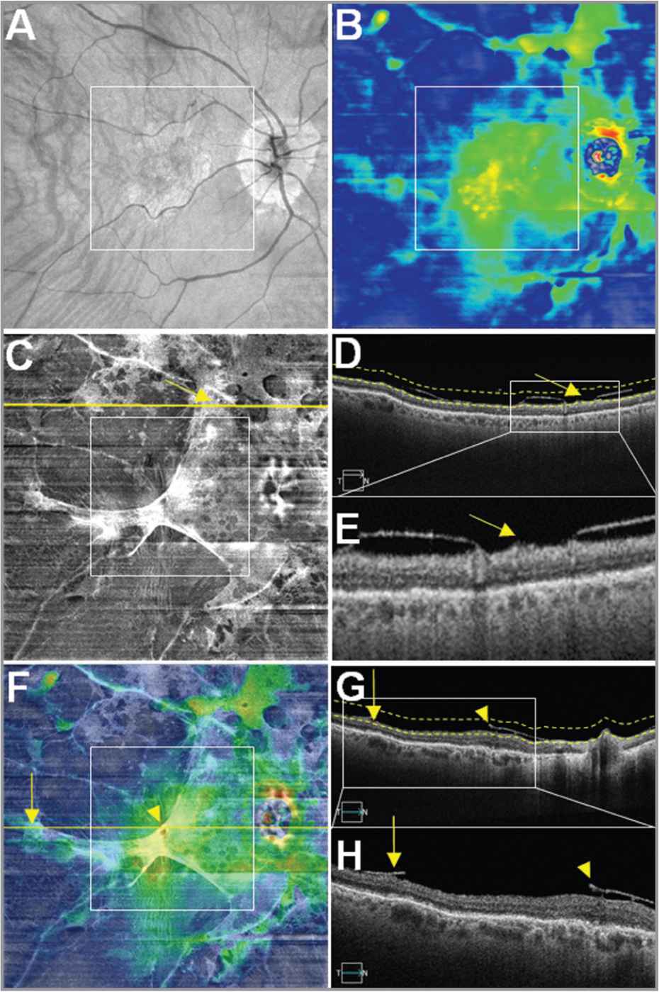 Case No. 5: Multi-segmented images from a single 12 mm × 12 mm swept-source optical coherence tomography (SS-OCT) scan of an epiretinal membrane (ERM) associated with incomplete posterior vitreous detachment (PVD) in the right eye of a 95-year-old woman. The white square boxes centered on the fovea in panels A, B, C, and F represent a 6 mm × 6 mm field of view (FOV). (A) OCT fundus image. Note preponderant vessel tortuosity in the posterior pole emerging from the inferior arcade. (B) Retinal thickness map (RTM) depicts a diffuse retinal thinning probably related to the patient age and myopia. (C) Vitreoretinal interface (VRI) en face image. The image shows a hyperreflective ERM. Some parts of the retinal surface present a fusion of both ERM and posterior hyaloid and highly reflect the light beam giving rise to well-lighted white signal. Yellow arrows in images C, D, and E emphasize the fusion between the ERM and the posterior hyaloid. (D) B-scan corresponding to the yellow line outside the 6 mm × 6 mm white square shown in image C. Dashed lines define the upper and lower boundaries of the VRI en face slab. (E) Magnification of the white rectangle of the image D. Yellow arrow points the zone of fusion between the posterior hyaloid and the ERM that is hyperreflective in the VRI slab. (F) Overlay of Panel B (60% transparency) on top of Panel C. Yellow horizontal line represents the foveal B-scan. Yellow vertical arrow in Panels F, G, and H highlight the extent of the ERM outside the 6 mm × 6 mm FOV. Yellow arrowheads point the intense hyperreflectivity of the complex made of the posterior hyaloid and the ERM. (G) Foveal B-scan. Dashed lines define the upper and lower boundaries of the VRI en face slab. (H) Magnified B-scan from within the white square shown in Panel G. The ERM extends from inside the 6 mm × 6 mm FOV (yellow arrowhead) to outside the 6 mm × 6 mm FOV (yellow vertical arrow). Yellow vertical arrow specifies the extent of the ERM that stretches outside the 6 mm × 6 mm FOV in the temporal area.