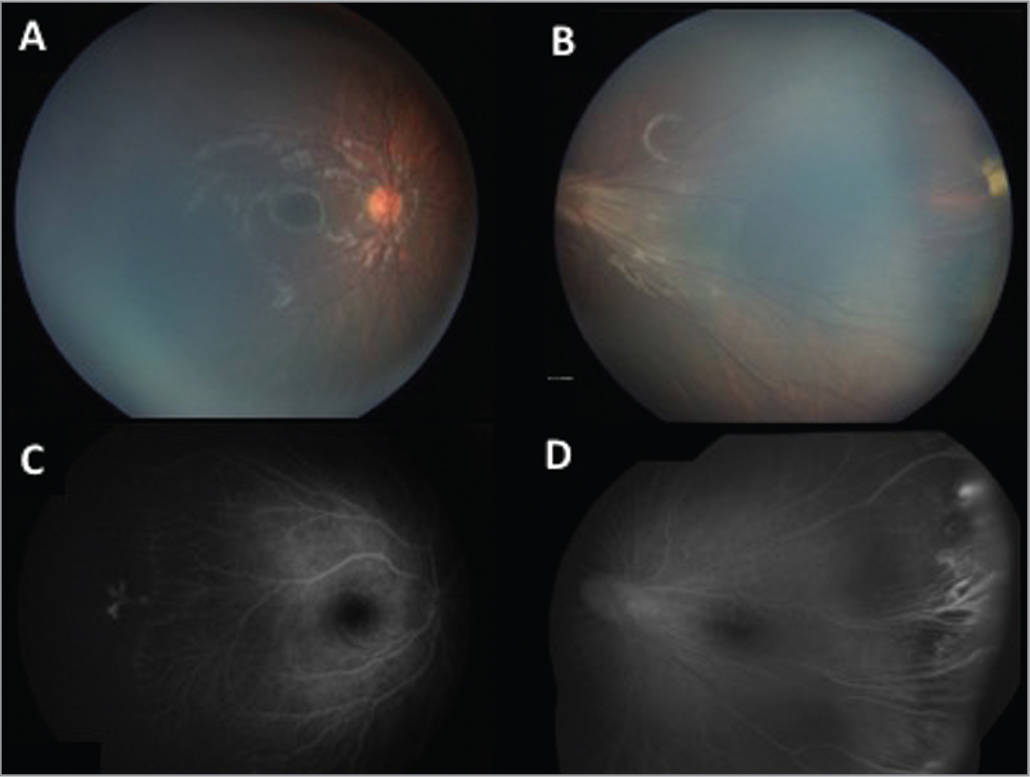 Color fundus images and late-phase fluorescein angiography of the proband before treatment. (A) Right eye: Color fundus image showing a relatively normal posterior pole. (B) Left eye: Color fundus image showing straightening of the retinal vasculature and temporal drag of the nerve and macula structures. (C) Right eye: Fluorescein angiography with an avascular nonperfused temporal retina and leakage. (D) Left eye: Fluorescein angiography with an avascular temporal retina and leakage.