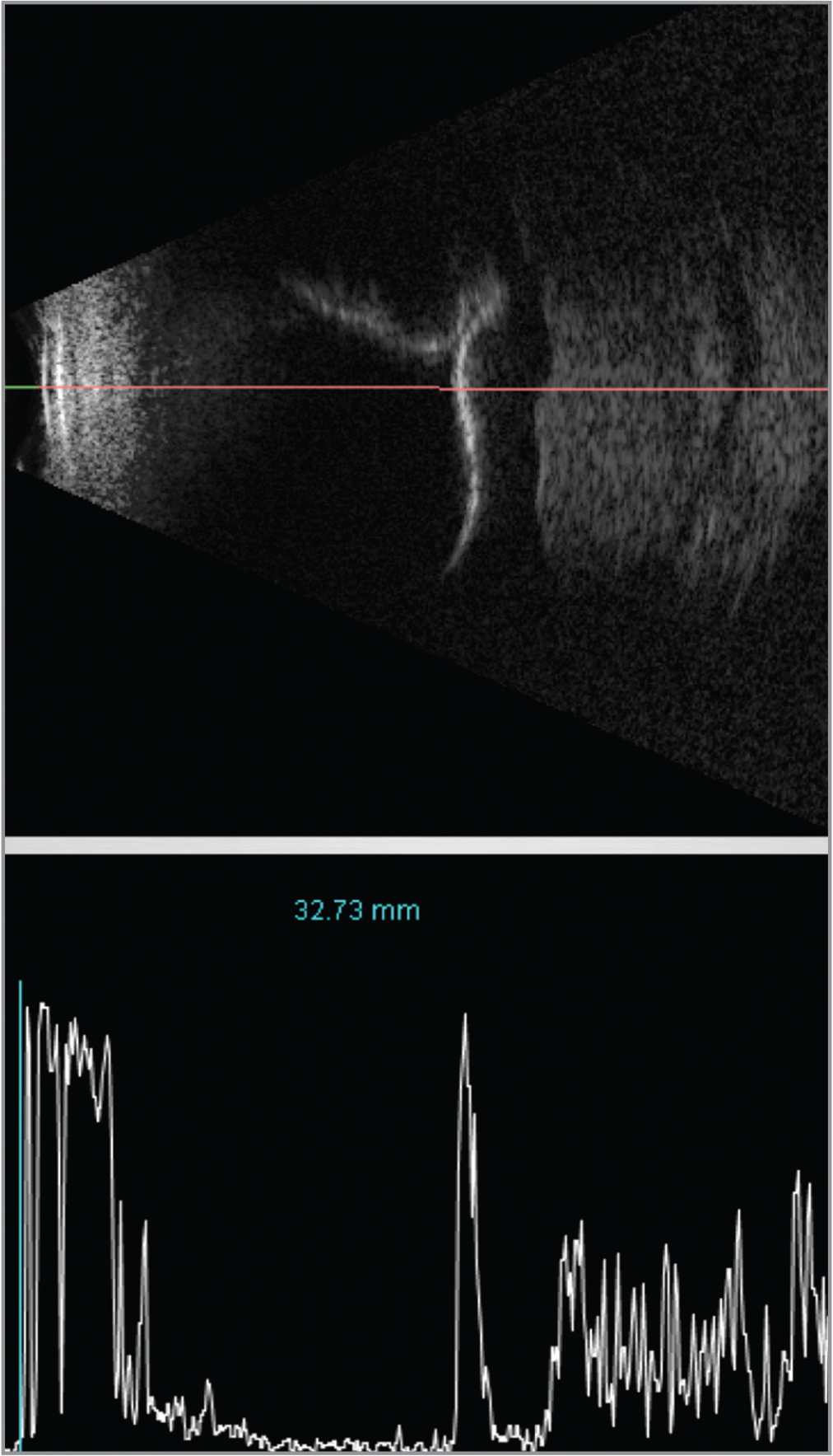 B-scan and A-scan ultrasonography of the right eye demonstrating the highly reflective retina detached over the moderately reflective choroidal tumor.