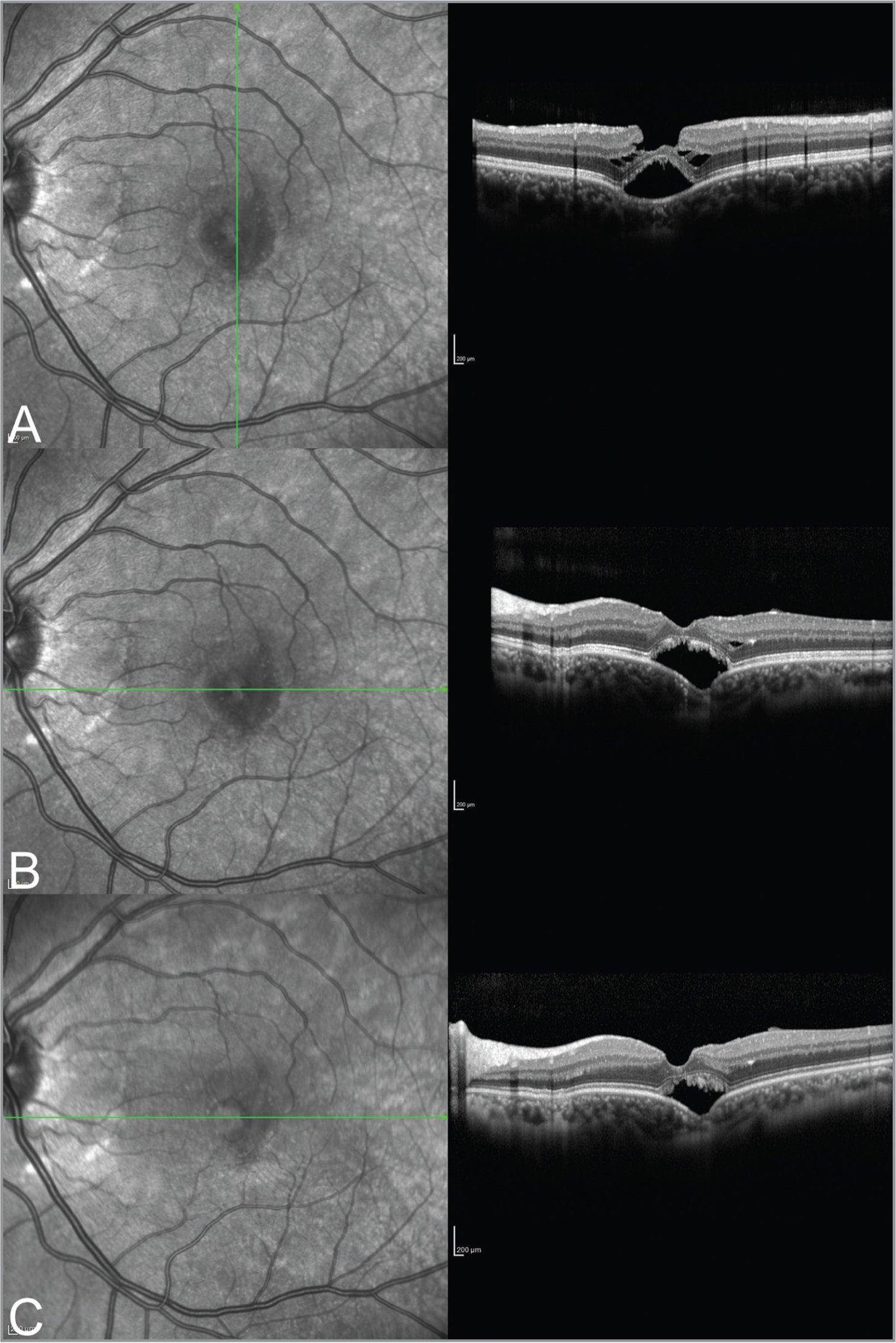 Horizontal and vertical enhanced depth imaging optical coherence tomography (EDI OCT) images of the left eye (A, B) 1 month post-trauma shows a nonconforming central focal choroidal excavation (FCE) with an overlying lamellar macular hole and schisis within Henle's fiber layer. Although choroidal thickness within the lesion is diminished, the choroidal structure does not appear to manifest cicatricial changes. The retinal pigment epithelium / Bruch's membrane complex is attenuated within the area of FCE. Three months after blunt trauma, EDI OCT shows reduced subretinal fluid and resolution of the schisis (C). The green arrows indicate the location and direction of the EDI OCT B-scans.