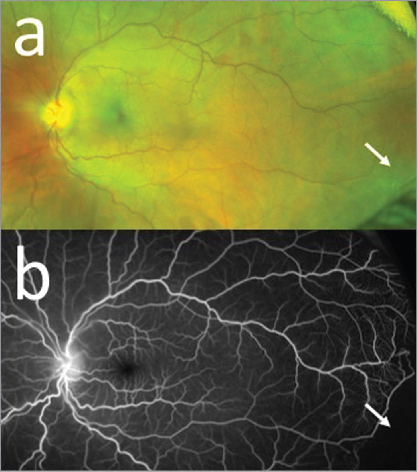 Fundus photo (a) and fluorescein angiography (b) demonstrating sclerotic vessel (arrow) in a 15-year-old male with sickle cell retinopathy with a history of trauma to the left eye.