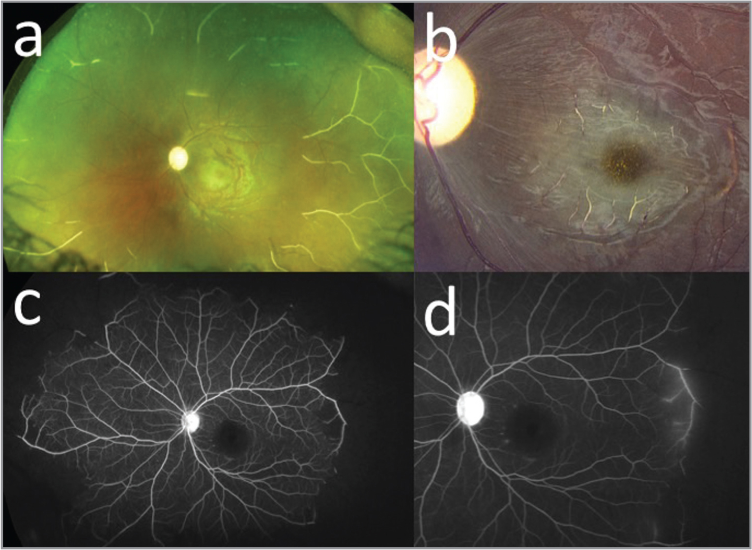 Fundus (a) and macula (b) photos of a 15-year-old male with sickle cell retinopathy with a history of trauma to the left eye. Fluorescein angiography demonstrated temporal leakage during late transit (c, d).