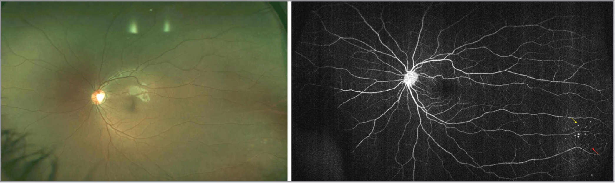 Fundus image (left) and widefield fluorescein angiography (right) of the fellow unaffected eye in a patient with Coats' disease demonstrating aneurysms (yellow arrow) and telangiectasias (red arrow).