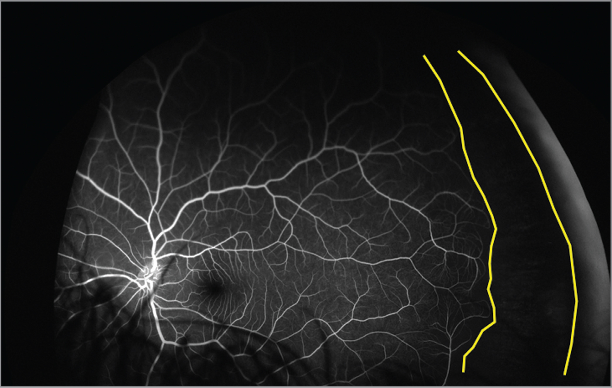 Widefield fluorescein angiography of the fellow unaffected eye in a patient with Coats' disease demonstrating peripheral nonperfusion (area between the yellow outline).