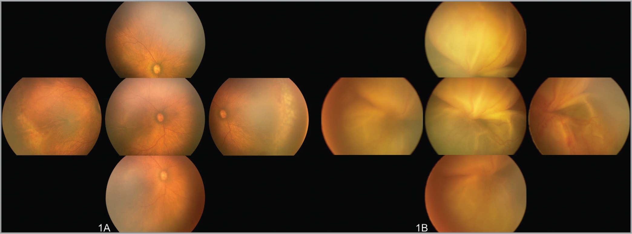 Fundus photographs of the right (A) and left eyes (B) at 37 weeks postmenstrual age (1 week after laser photocoagulation). The right eye demonstrated the resolution of plus disease with residual ridge and laser scars in the avascular retina. Severe exudative retinal detachment (ERD) with persistent vascular dilation noted in the left eye.