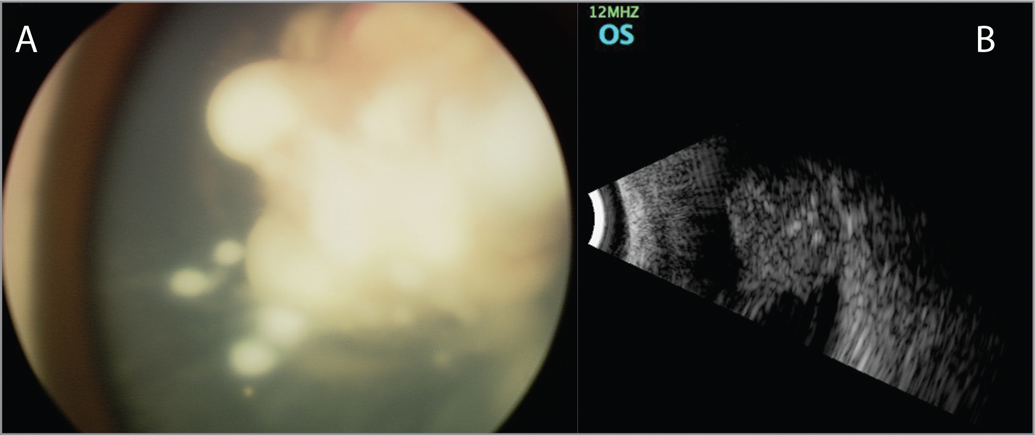 (A) Large, predominantly endophytic tumor in the left eye. (B) Ultrasound demonstrated homogenous hyperechoic mass and few calcifications.
