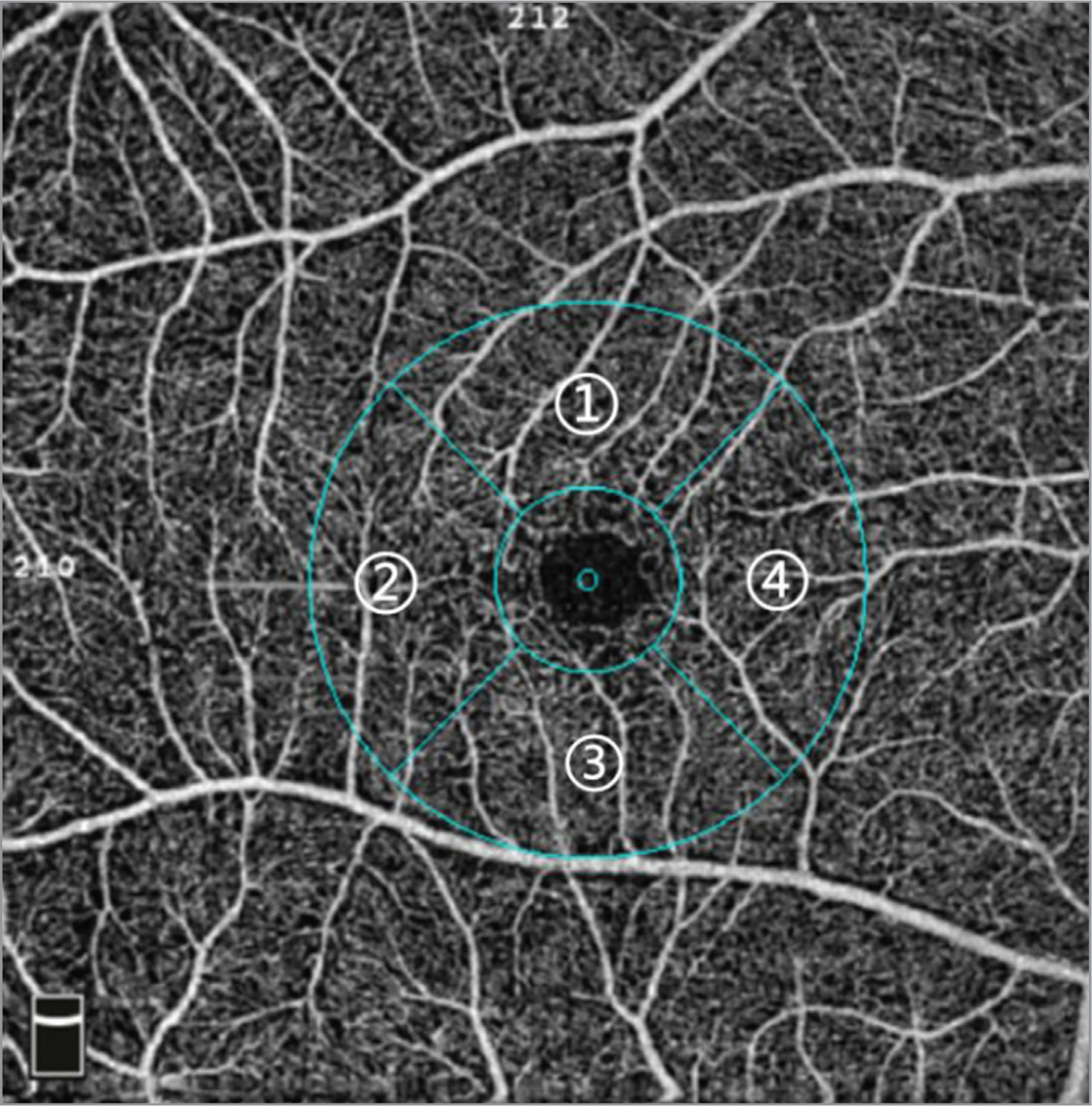 A high-definition 6 mm × 6 mm of the macular area in a normal individual in optical coherence tomography angiography. (1) Superior area in the parafoveal area. (2) Temporal area in the parafoveal area. (3) Inferior area in parafoveal area. (4) Nasal area in parafoveal area.
