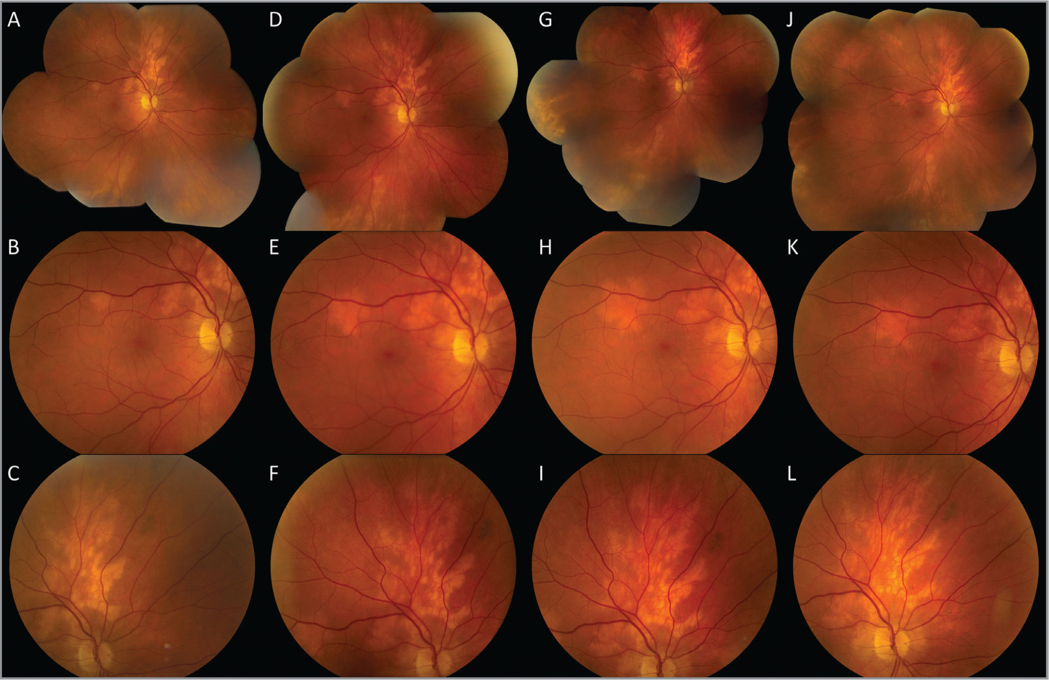 Color fundus photos at the time of presentation (A, B, C), 19 months later (D, E, F), 27 months later (G, H, I), and 6 weeks after posterior sub-Tenon's triamcinolone acetonide (J, K, L). Hypopigmented choroidal lesions can be seen superior to the disc and along the superotemporal arcade. Over time, the size of the lesions slowly increased, most easily seen with examination of the lesion along the superotemporal arcade (B, E, H). Following steroid treatment, the lesions appeared atrophic (J, K, L) and exhibited no further growth.