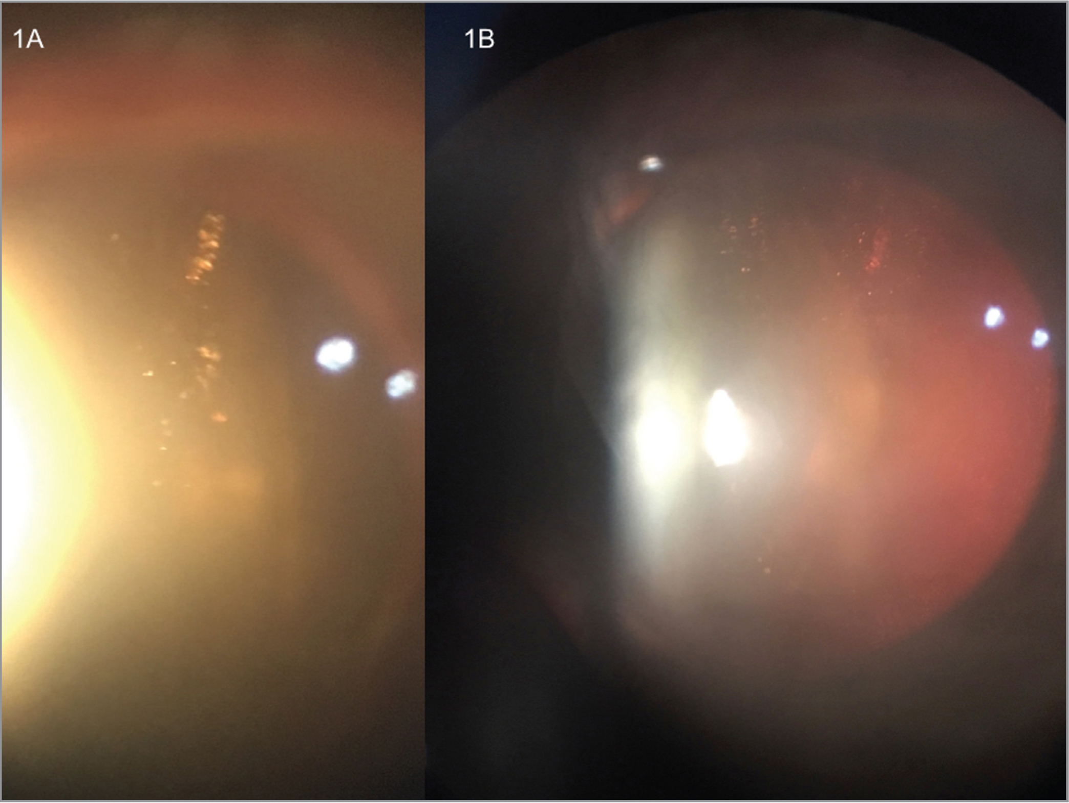 (A, B) Two cases with round intravitreal material suggestive of silicone oil droplets after complete resolution of the inflammatory reaction. Saldanha Rodrigues syringes had been used in all cases.