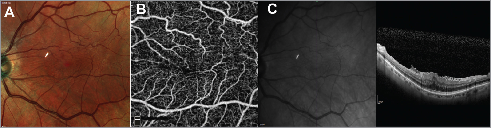 The panel shows the images of a patient who underwent multimodal imaging for an epiretinal membrane. The patient has some retinal stria over the macula on the multicolor image (A) with a small foveal avascular zone on the superficial slab of the optical coherence tomography angiography (OCTA) image (B). The vertical spectral-domain OCT scan reveals thickening of inner retinal layers with elevated, corrugated foveal contour (C).