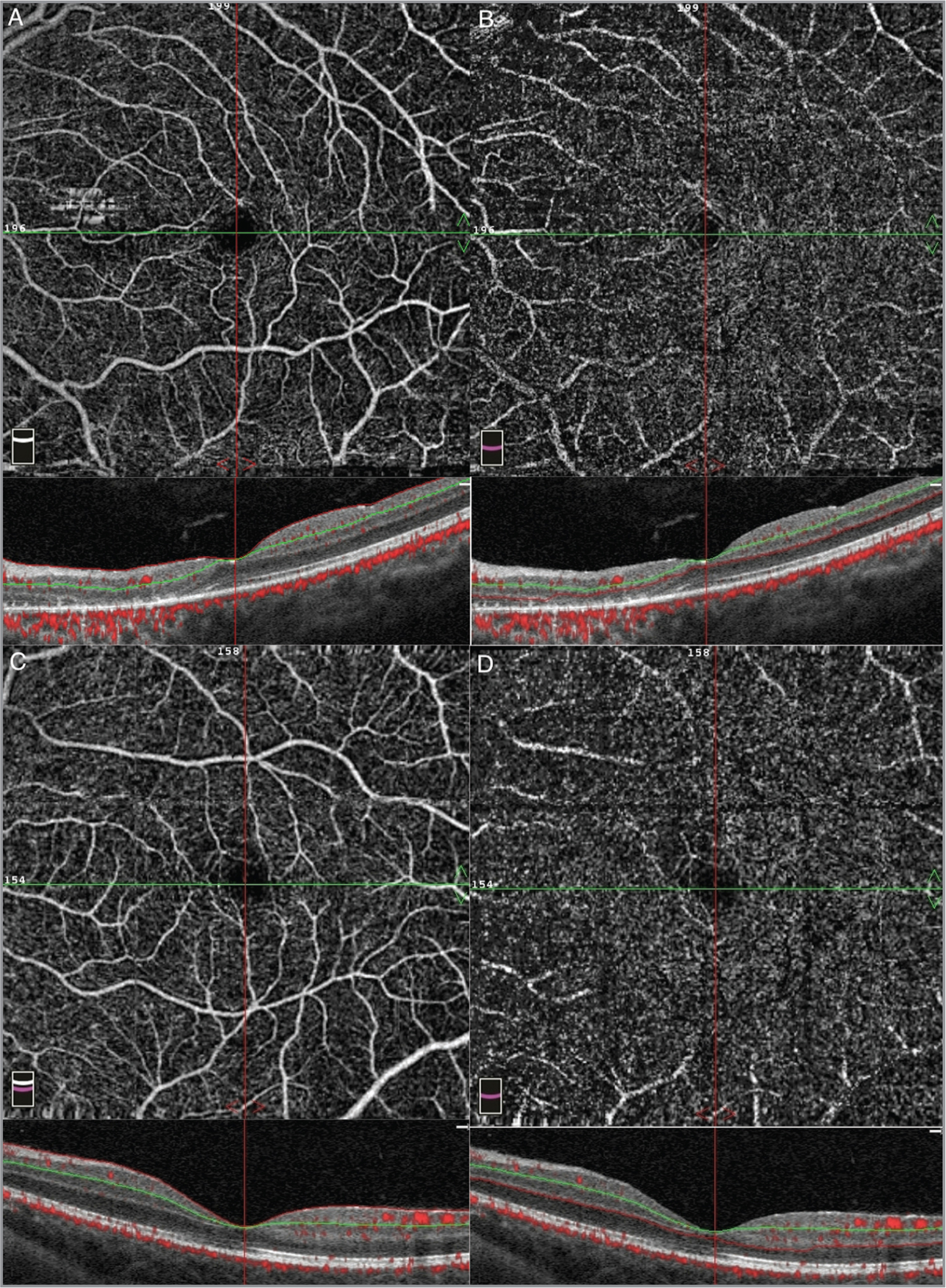 Normal optical coherence tomography angiography of (A) the superficial capillary plexus and (B) deep capillary plexus in Case 1 and (C) superficial capillary plexus and (D) deep capillary plexus in Case 2.