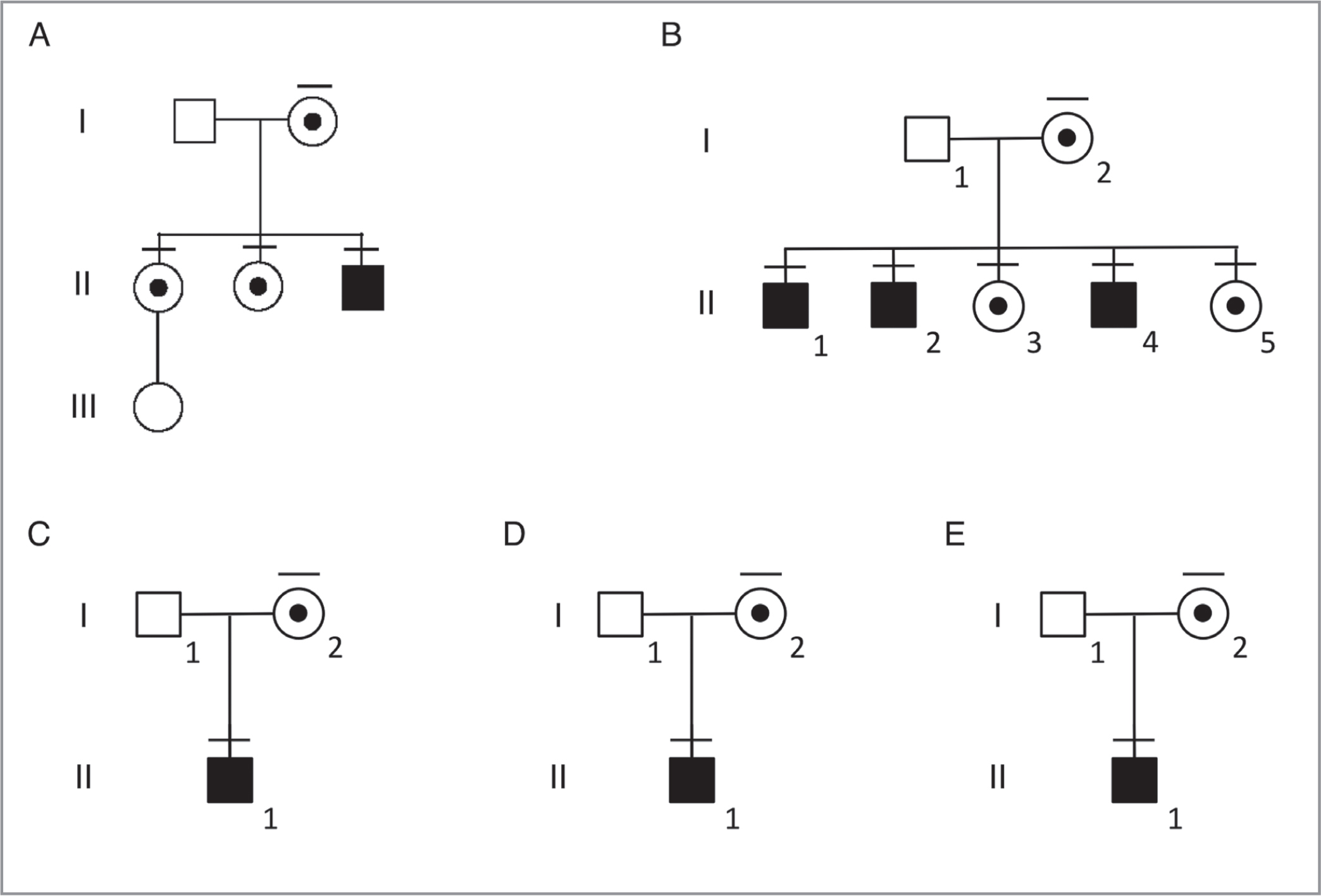 Pedigrees for choroideremia. (A) In the first family, the mother (I-2) and two daughters (II-1 and II-2) are carriers of the mutation in the CHM gene located on the X chromosome and display pigmented streaks upon fundus examination. The son (II-3) is hemizygous for the CHM mutation and has clinical manifestation of the choroideremia phenotype. The only granddaughter is unaffected (III-1). (B) A second family has a mother (I-2) that is a carrier of the mutation in CHM with pigmented streaks and has passed on the carrier status and the pigmentation phenotype to her daughters (II-3 and II-5) and the choroideremia phenotype to each of her three sons (II-1, II-2, and II-4). (C–E) Three additional families also have a mother (I-2) that is a carrier for the CHM mutation and displays the pigmentation carrier phenotype. Each of the sons display the clinical choroideremia phenotype and disease pathology (II-1). Squares = males; circles = females; open symbols = unaffected; filled symbols = affected; circles with black dot and bar = female carriers with pigmented streaks in the retina