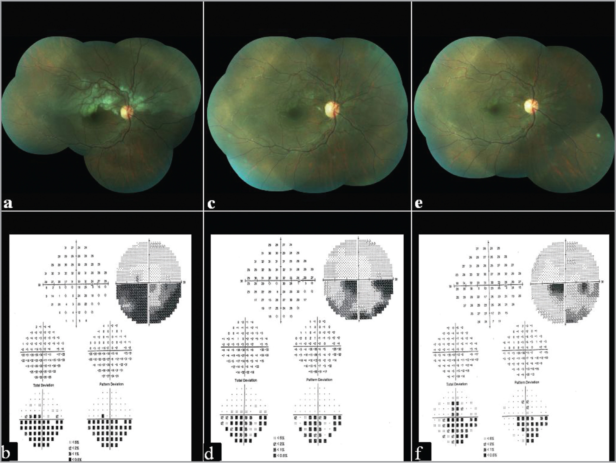 (a) Fundus photo showing opacification of the right eye superior hemi-retina 3 days post-procedure. (b) Humphrey Visual Field (30-2) showing presence of inferior hemi-field defect in the right eye. (c, e) Fundus photos showing decrease in retinal whitening at 4 weeks and 7 weeks, respectively. (d, f) Visual fields showing improvement in hemi-field defect at 4 weeks and 7 weeks, respectively.
