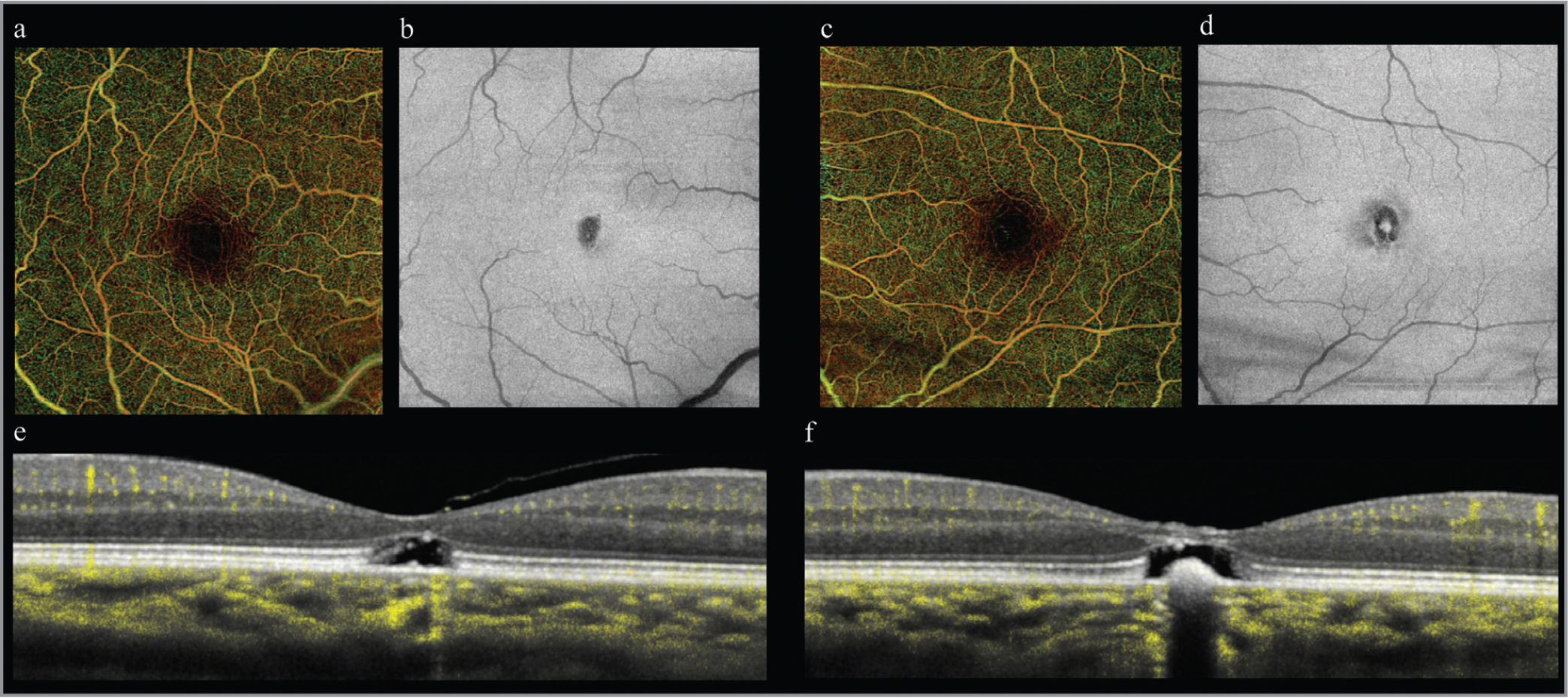 Full retina color depth encoded en face optical coherence tomography angiography (OCTA) shows relatively symmetric foveal avascular zones and slight vessel tortuosity in the right (a) and left (c) eyes. Structural en face OCT demonstrates loss of reflectivity in the right eye (b) and left eye (d), with central reflectivity in the left eye corresponding to retinal pigment epithelium hyperplasia. Ten-degree dense B-scan OCTA images show high-resolution structure of the right (e) and left (f) eyes, with OCTA signal overlaid in yellow showing a normal superficial capillary plexus and deep vascular complex. There is slight hypertransmission of signal in the fovea of the right eye (e) due to retinal pigment epithelium (RPE) thinning and blockage of signal in the fovea of the left eye (f) due to RPE hyperplasia.
