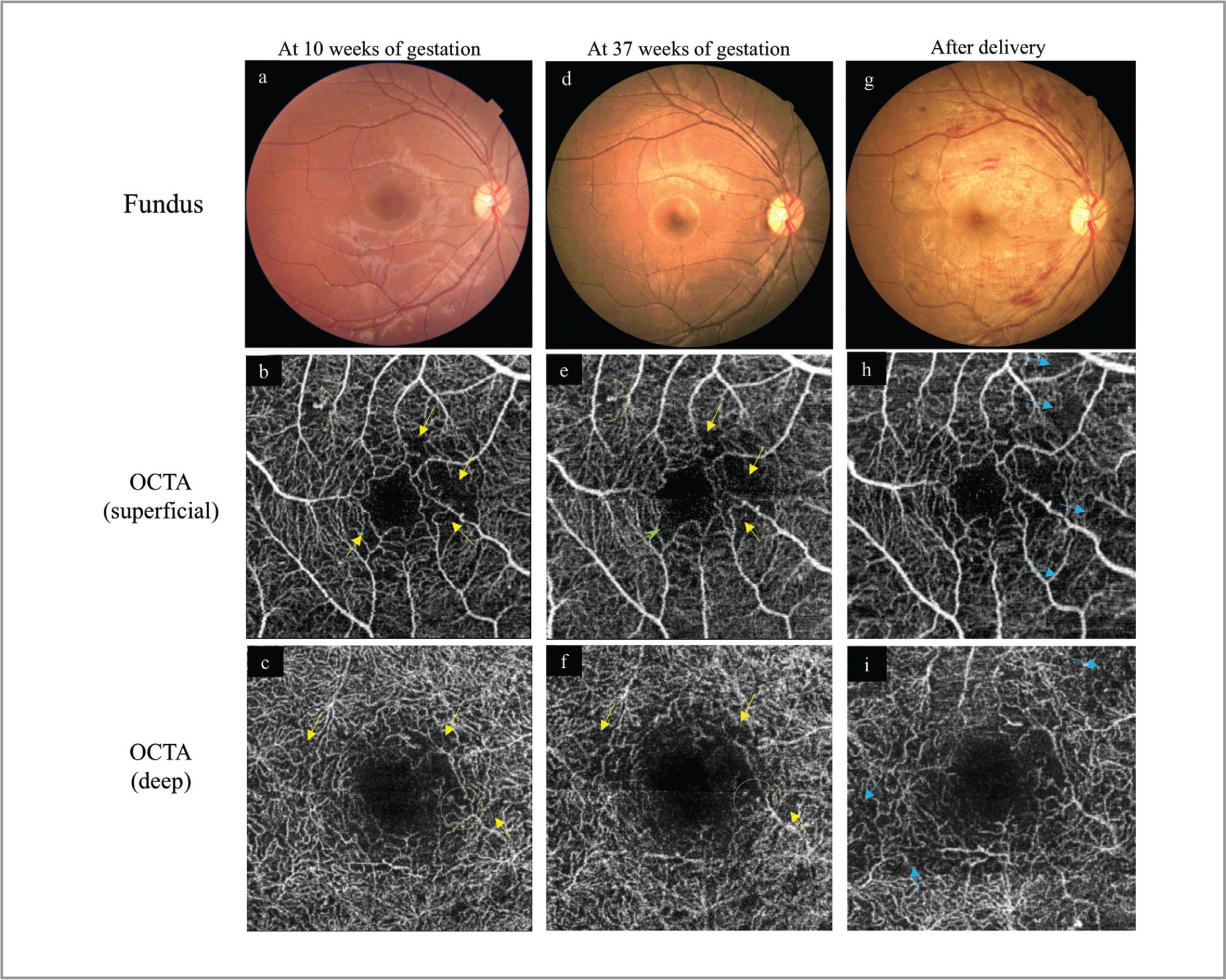 Clinical course of the right eye before and after delivery. Fundus photographs and macular 3 × 3-mm optical coherence tomography angiography (OCTA) images were obtained at 10 weeks of gestation (a–c), 37 weeks of gestation (d–f), and 6 weeks after delivery (g–i). The images in the second row (b, e, h) show the superfical vascular plexus, and those in the third row (c, f, i) show the deep capillary plexus centered on the fovea. Before delivery, microaneurysms (yellow circles) and small capillary nonperfusion (yellow arrows) are seen. There are no apparent differences between 10 weeks (b, c) and 37 weeks of gestation (e, f), except for slight enlargement of the foveal avascular zone (e, green arrow). After delivery, multiple flame-shaped retinal hemorrhages are seen (g), and OCTA shows new areas of decreased flow (blue arrows) in both plexuses (h, i).
