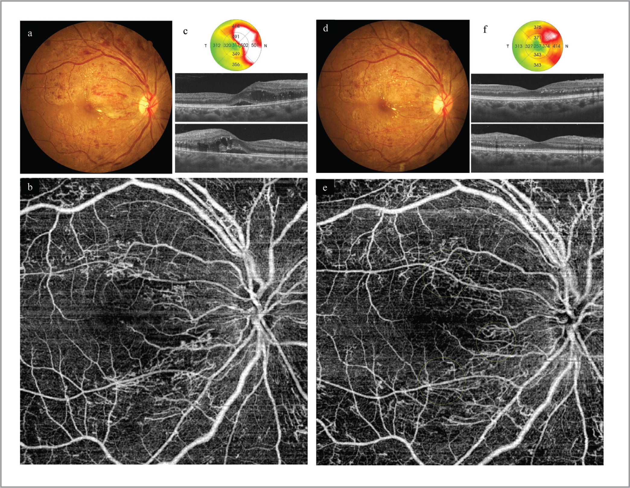 The fundus images before (a–c) and after (d–e) starting antihypertensive therapy. (a) Before therapy (blood pressure [BP] 15 weeks after delivery, 150/100 mm Hg), marked flame-shaped hemorrhages and some hard exudates are seen. (b) A 9 × 9-mm optical coherence tomography angiography (OCTA) image of the full-thickness retina shows irregulary dilated radial peripapillary capillaries (RPCs). (c) A macular OCT map (upper row) shows macular edema, especially nasally; horizonal (middle row) and vertical (lower row) images show cystic changes in the outer nuclear layer and subretinal fuild under the fovea. (d). After hypertensive therapy (BP 17 weeks after delivery, 128/81 mm Hg), the hemorrhages are decreased. (e) OCTA also shows that some areas of dilation of the RPCs are decreased (yellow circles). (f) OCT images show that the cystic edema is decreased and the subretinal fluid has resolved.