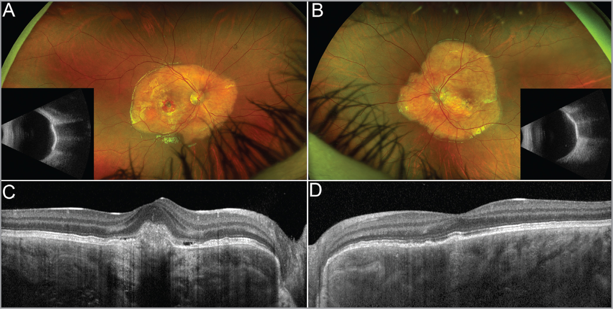 Multimodal imaging of bilateral choroidal osteoma. Ultra-widefield multicolor images showed the presence of an extensive yellowish lesion corresponding to echogenicity attenuation showed by ultrasound for the right eye (OD) (A) and left eye (OS) (B), respectively. Macular hemorrhage is shown OD, as well. Structural optical coherence tomography (OCT) showed subretinal mixed-reflective material accumulation OD corresponding to choroidal neovascularization (C); Structural OCT detected hyperreflective retinal bands rarefaction and multiple small hyperreflective subretinal accumulations OS (D).