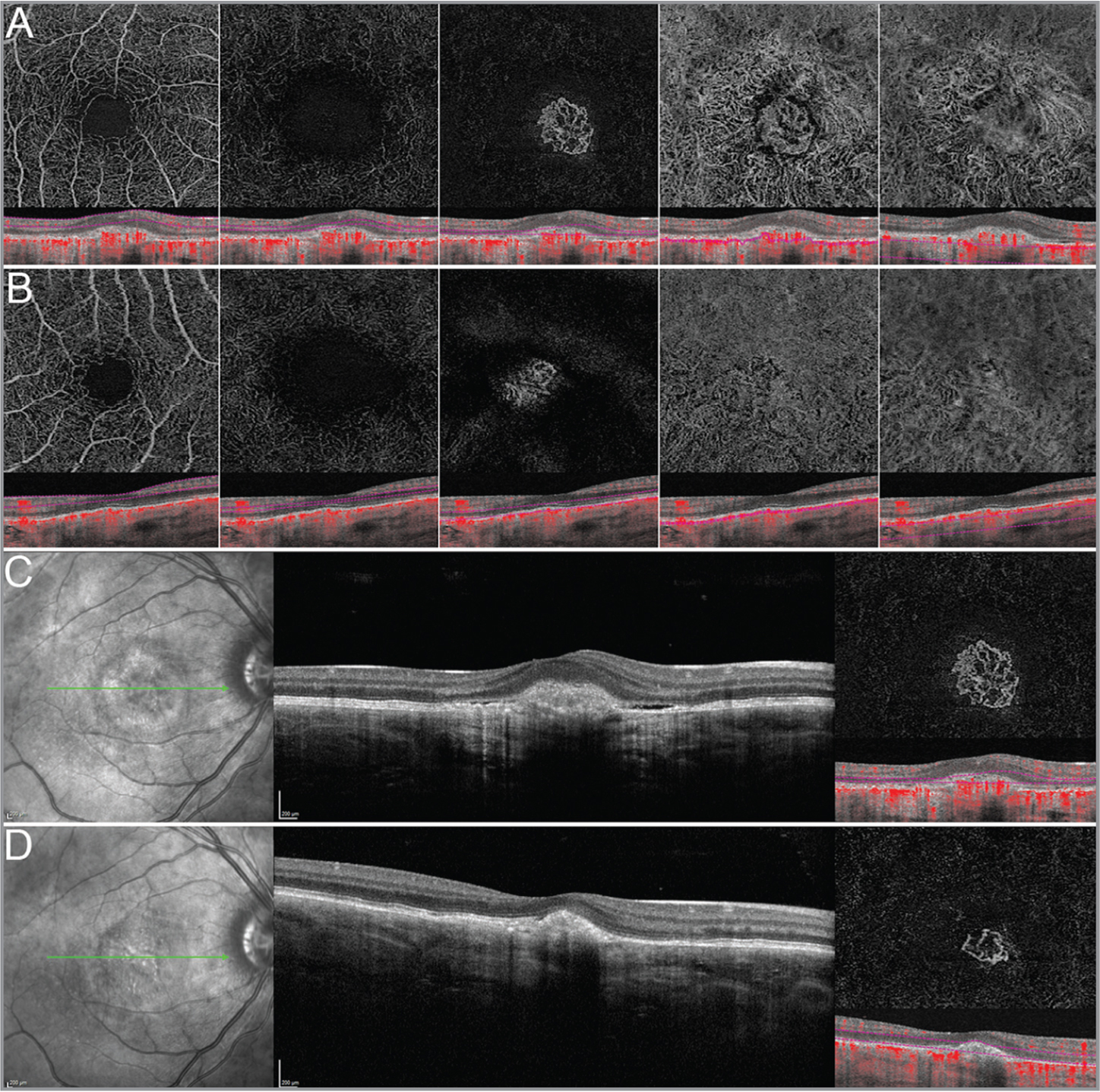 Optical coherence tomography angiography (OCTA) of bilateral choroidal osteoma. OCTA reconstructions show the following finds for the right eye (OD) (A): preserved superficial capillary plexus, foveal avascular zone enlargement in the deep capillary plexus, well-defined choroidal neovascularization (CNV) in the avascular zone, partially preserved choriocapillaris, and a complex peri-lesional vascular organization with thin tortuous vessels surrounding the lesion with poorly defined choroidal vessels. B-scan structural OCT with over-imposed flow information is provided, as well. The same findings are also visible in the left eye (B). After a single 1.0 mg/0.025 mL aflibercept injection, total exudation regression and CNV reduction was seen OD (C: baseline; D: 3-month follow-up).