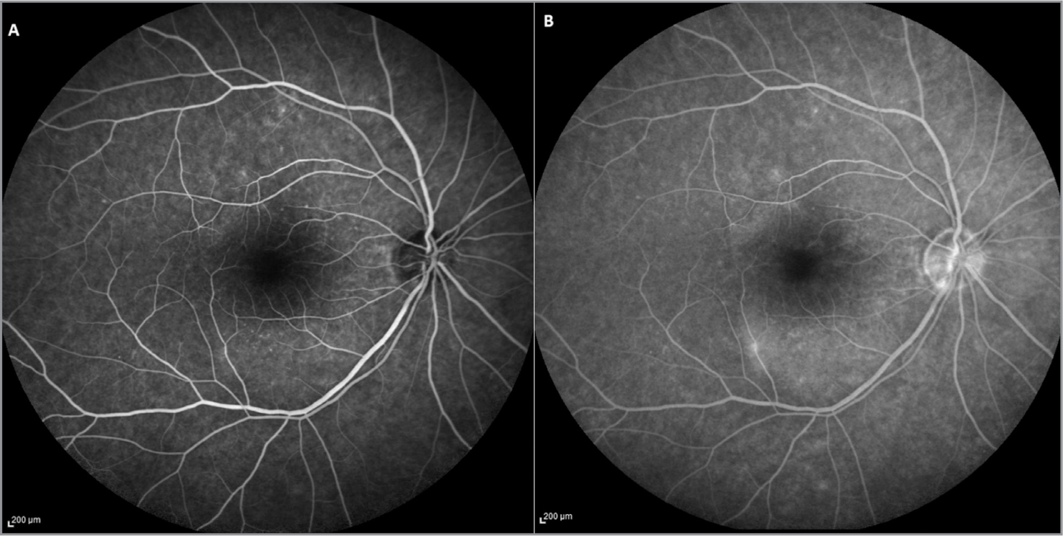 (A, B) Fluorescein angiography revealing a central hypofluorescence in the early stages (A) followed by a progressive hyperfluorescence in the area of the lesion in the mid- and late-phases of examination (B).