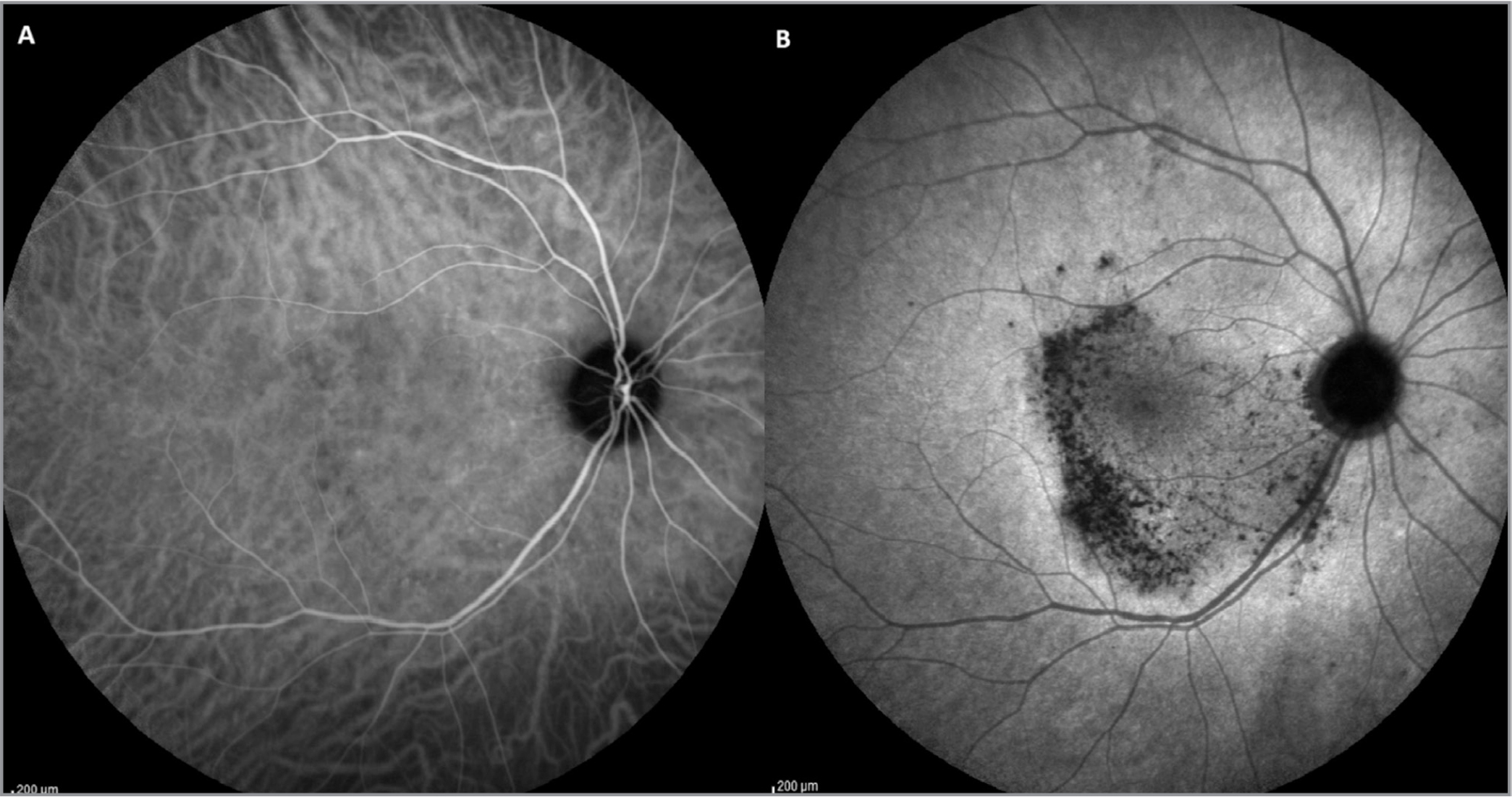 (A, B) Indocyanine green angiography showed hypofluorescent areas in the early stages corresponding to the lesion of spectral-domain optical coherence tomography (A). This hypofluorescence persisted also in the late stages of the examination (B).