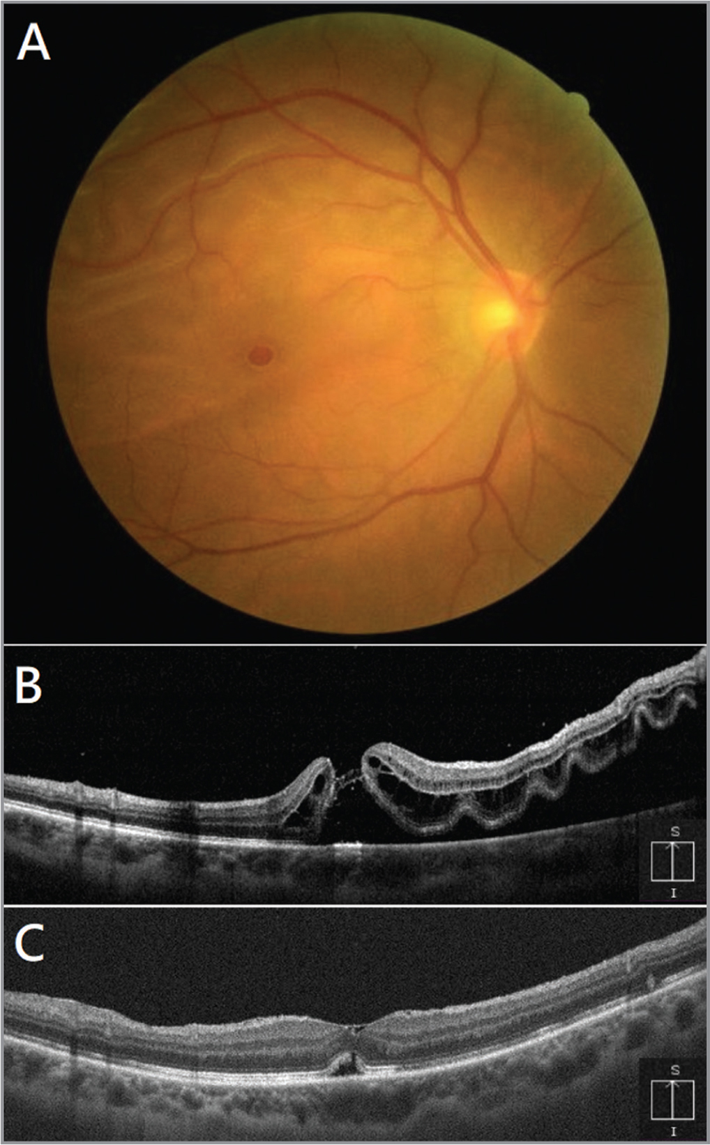 (A) Color fundus photography showed retinal detachment involving the superior macula and a macular hole (MH). (B) Preoperative optical coherence tomography (OCT) demonstrated subretinal fluid (SRF) and retinal folding involving superior macula, and a nearly full-thickness MH with the elongated outer segments connecting at the fovea; no vitreomacular traction was noted. (C) Postoperative OCT showed that the MH was sealed with a residual SRF pocket at the fovea.