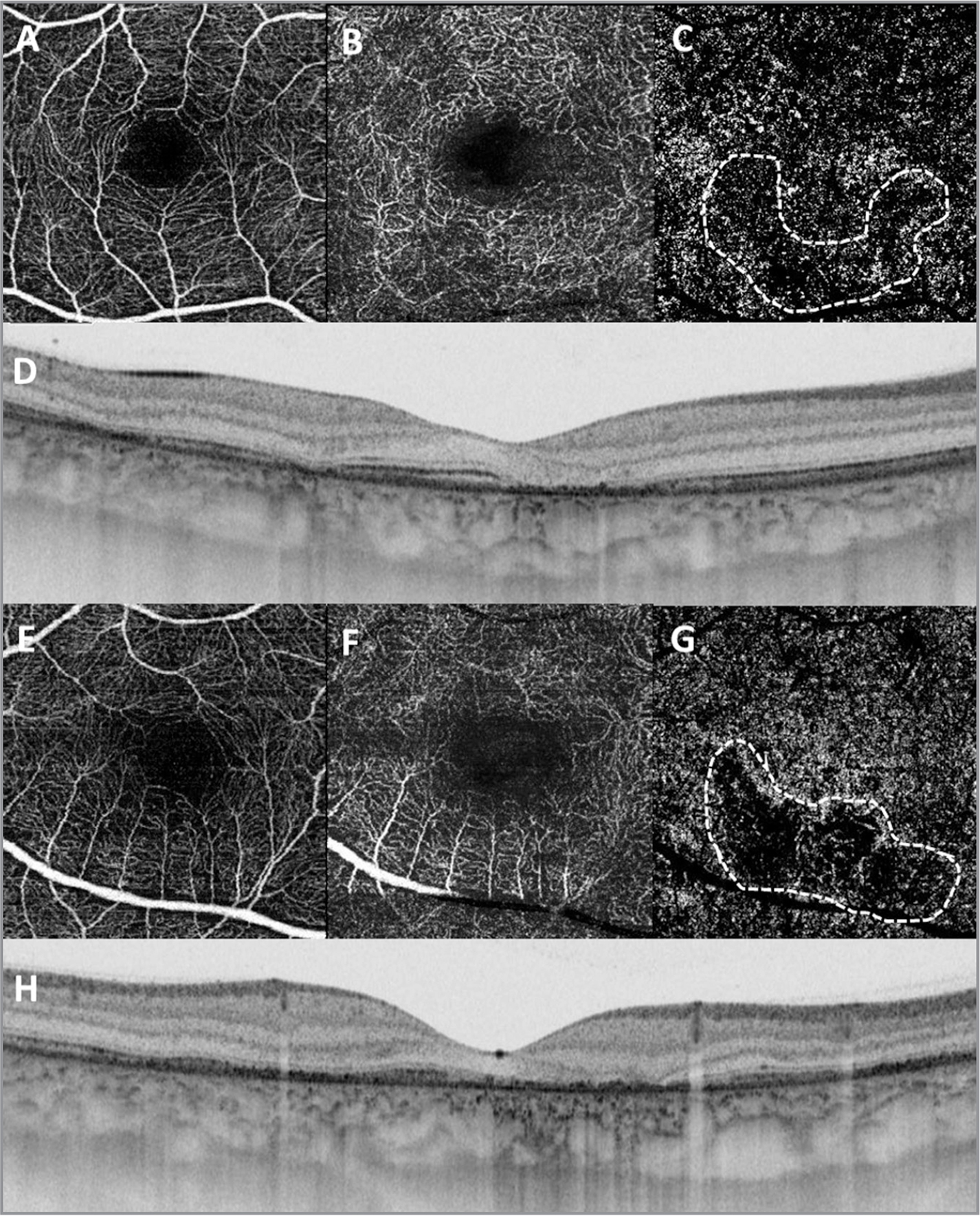 Optical coherence tomography angiography (OCTA) of patient No. 2. Swept-source OCTA. (A) Normal superficial plexus. (B) Deep retinal vascular plexus with some voids of vessels. (C) Choriocapillaris with large area of reduced perfusion (white dotted area).