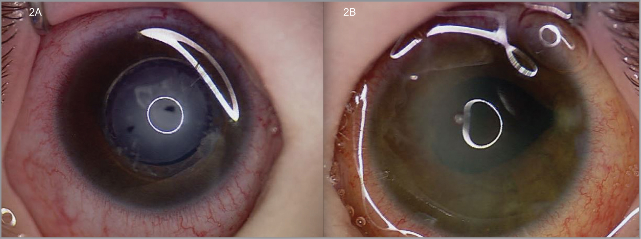 Examination under anesthesia of patient from Case 2 at postoperative week 1, where patient disclosed new onset of pupillary block glaucoma with intraocular pressure (IOP) of 29 mm Hg in the right eye (A) and a relatively clear cornea, shallow anterior chamber, and an IOP of 5 mm Hg in the left eye (B).