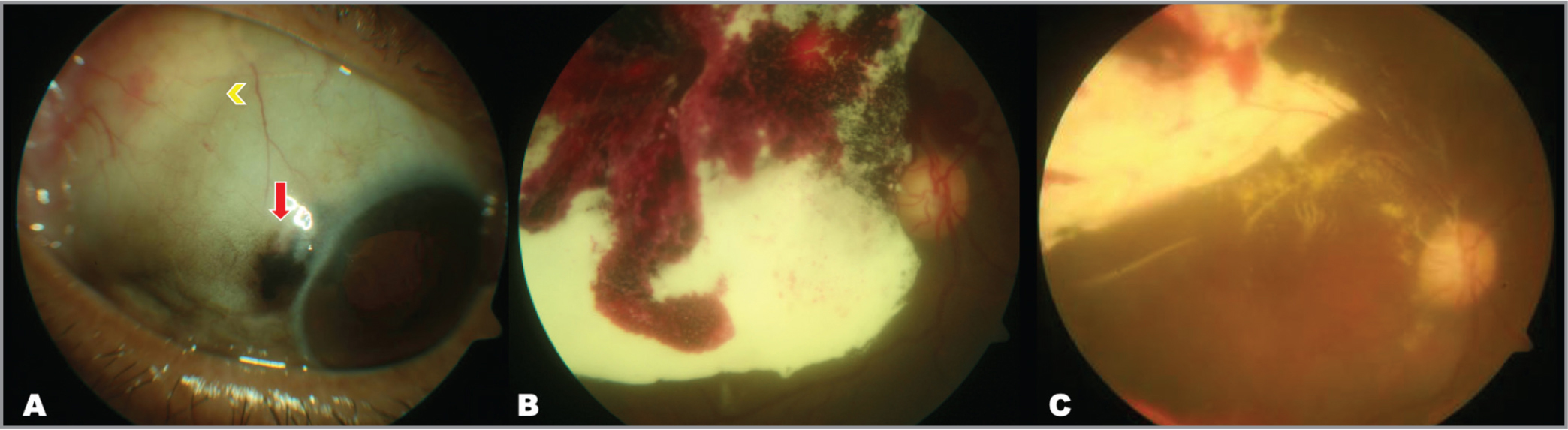 Globe perforation during posterior sub-Tenon's injection of triamcinolone acetonide. (A) Anterior segment photograph showing sub-Tenon's deposit of triamcinolone in the superotemporal quadrant (yellow arrow) with uveal show at the 10-o'clock suggestive of globe rupture (red arrow). (B) Fundus photograph of the right eye showing sub-macular triamcinolone with subretinal and vitreous hemorrhage. (C) Fundus photograph 6 months after vitrectomy showing attached retina with presence of residual subretinal triamcinolone superior to the fovea.