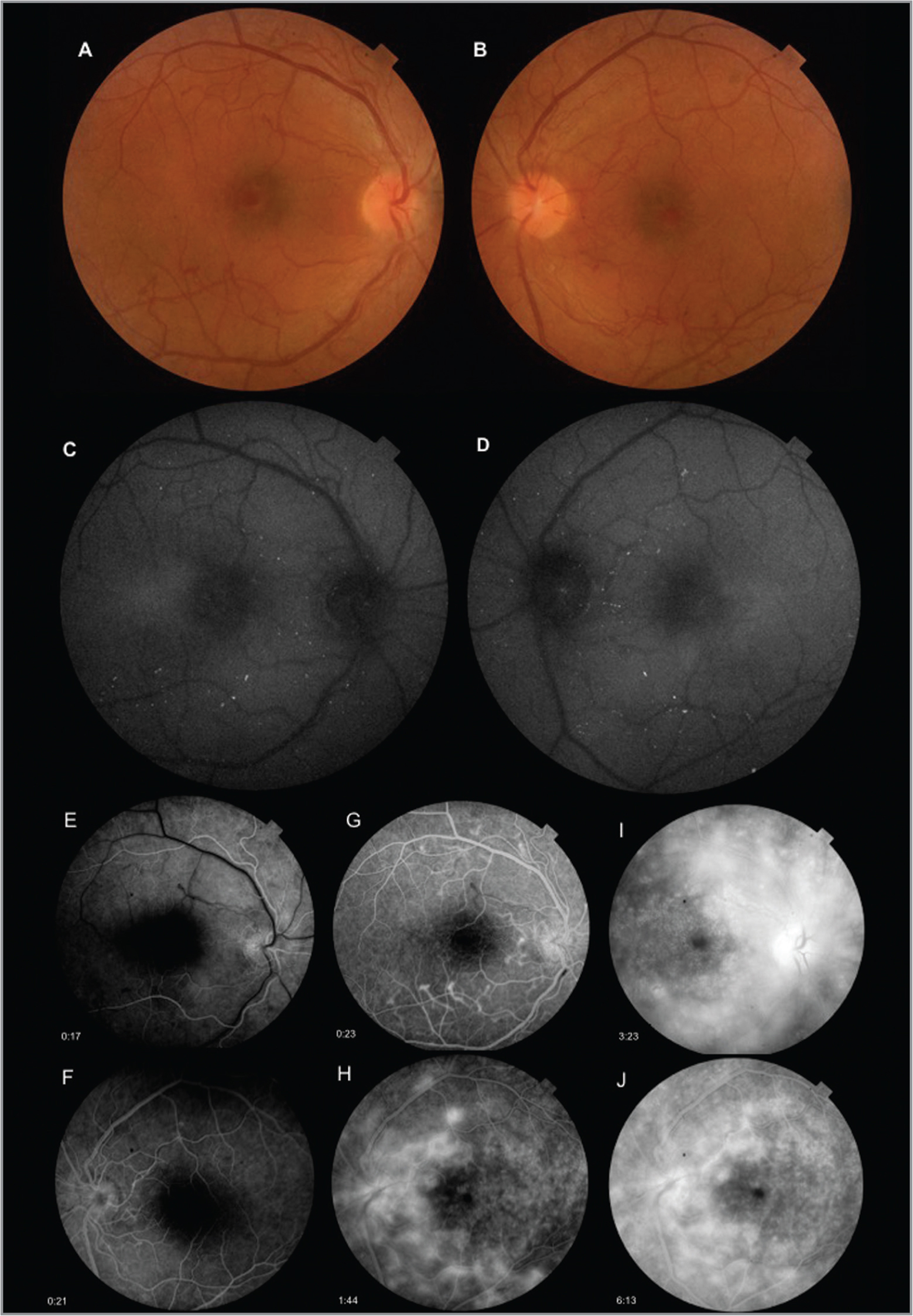 Fundus photographs demonstrating abnormal loop-shaped, tortuous vessels radiating from the optic disc (A, B). Fundus autofluorescence imaging revealing a perimacular hyperautofluorescent ring and hyperautofluorescent dots (C, D). Fluorescein angiography showing arterial phase in the right eye (OD) (E), early venous phase in the left eye (OS) (F), venous phase showing filling of the loops OD (G) and OS (H), late phase revealing filling defect in some loops, and diffuse leakage OD (I) and OS (J).