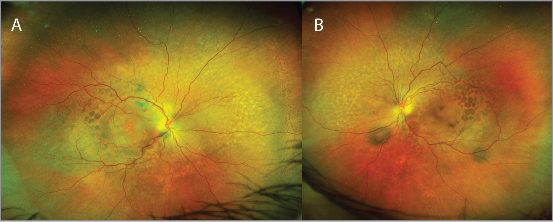 Ultra-widefield imaging of the right eye (A) and the left eye (B).